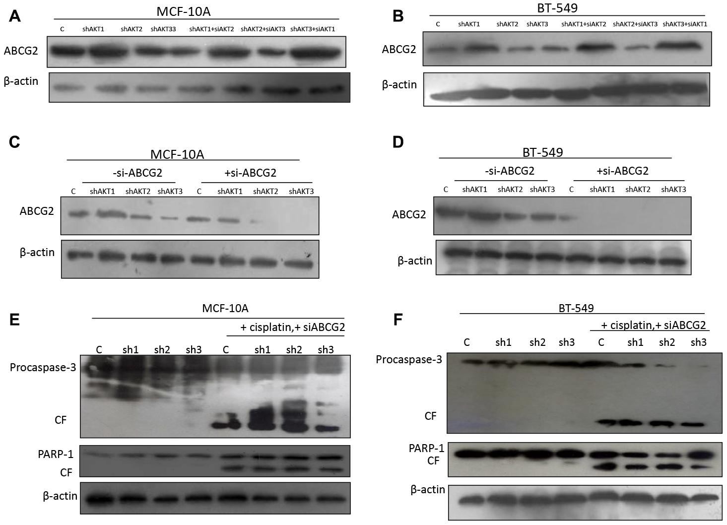 AKT1 effect on ABCG2 while abrogating cisplatin sensitivity.
