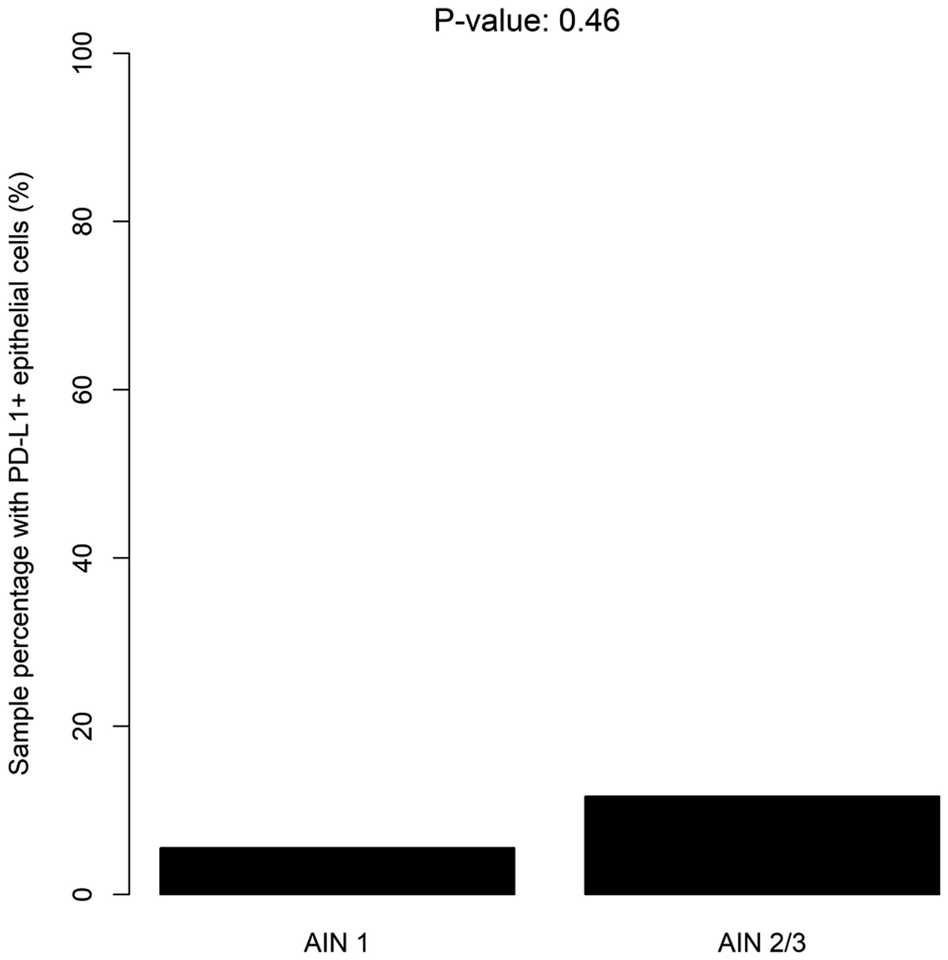 Distribution of PD-L1+ epithelial cells according to the severity of dysplasia (LSIL/HSIL).