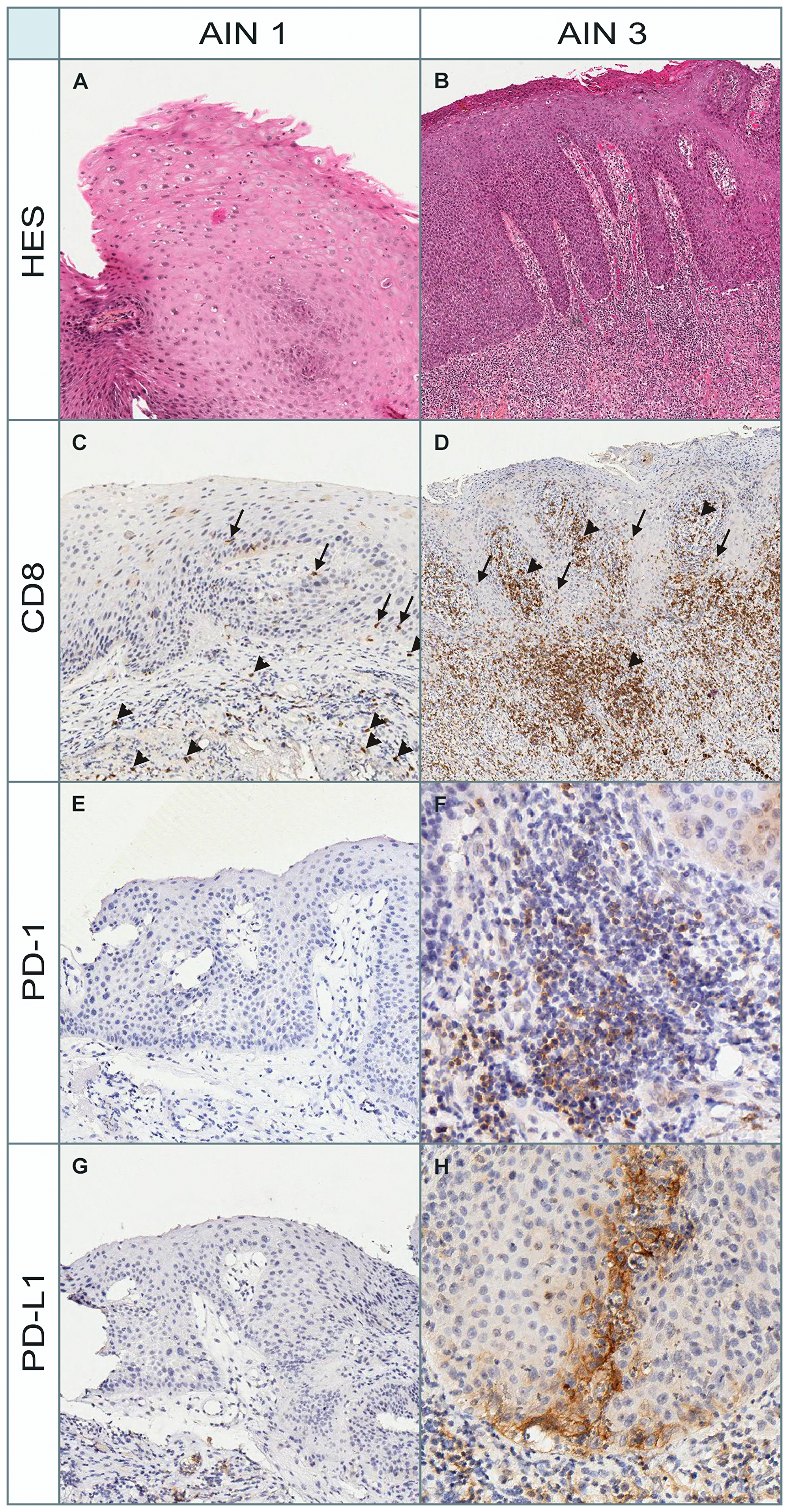 Morphological and immunohistochemical (PD-1, PD-L1, and CD8) aspects in a patient with AIN1 and AIN3.