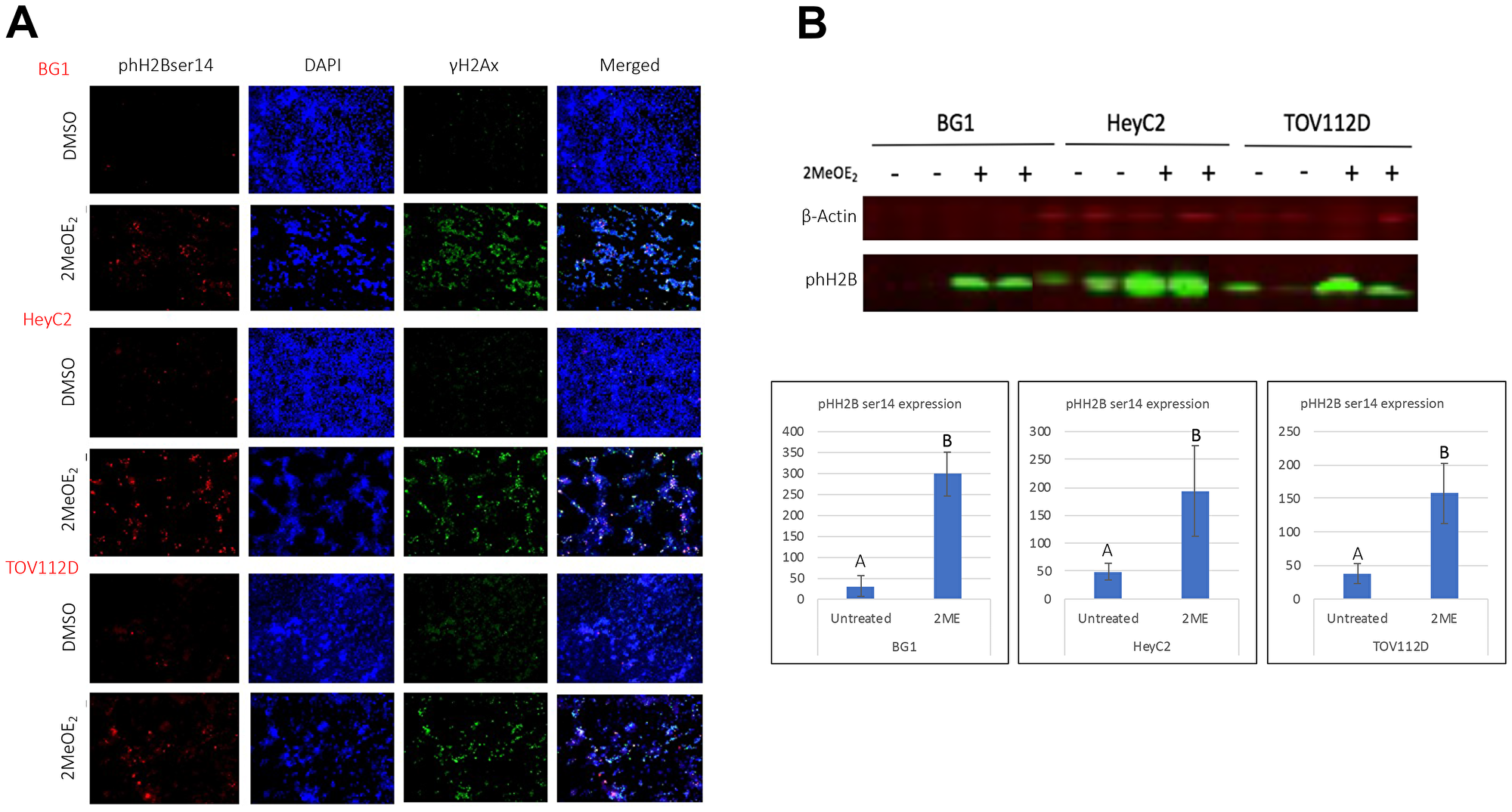 2MeOE2 induces phosphorylation on ser 14 of histone H2B in human ovarian cancer cells.