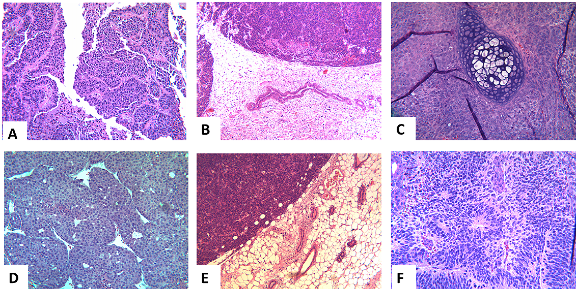 Representative histology of the extirpated tumors in the different groups.