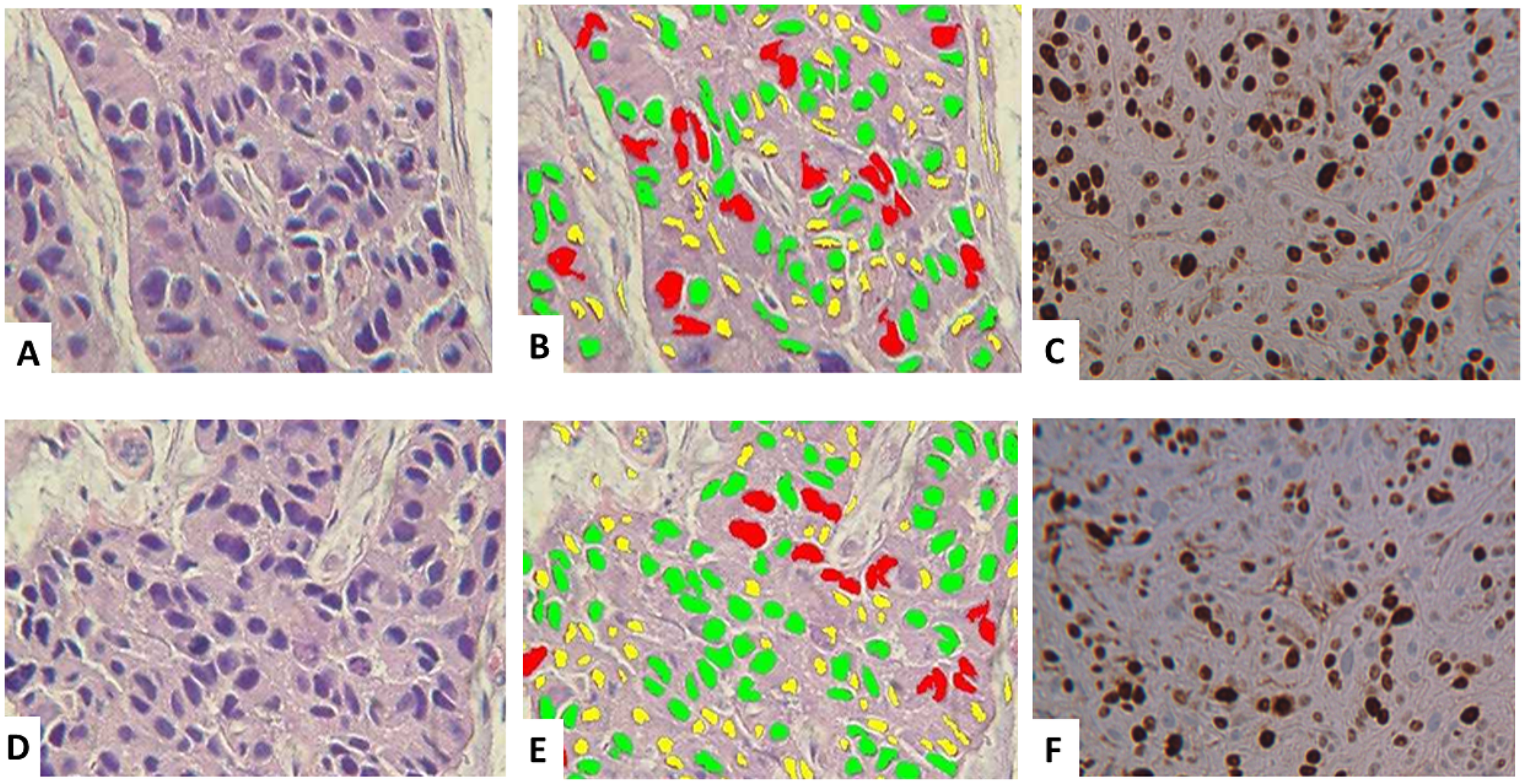 Histology and digital image analysis with additional specific recognition algorithms (SRAs).