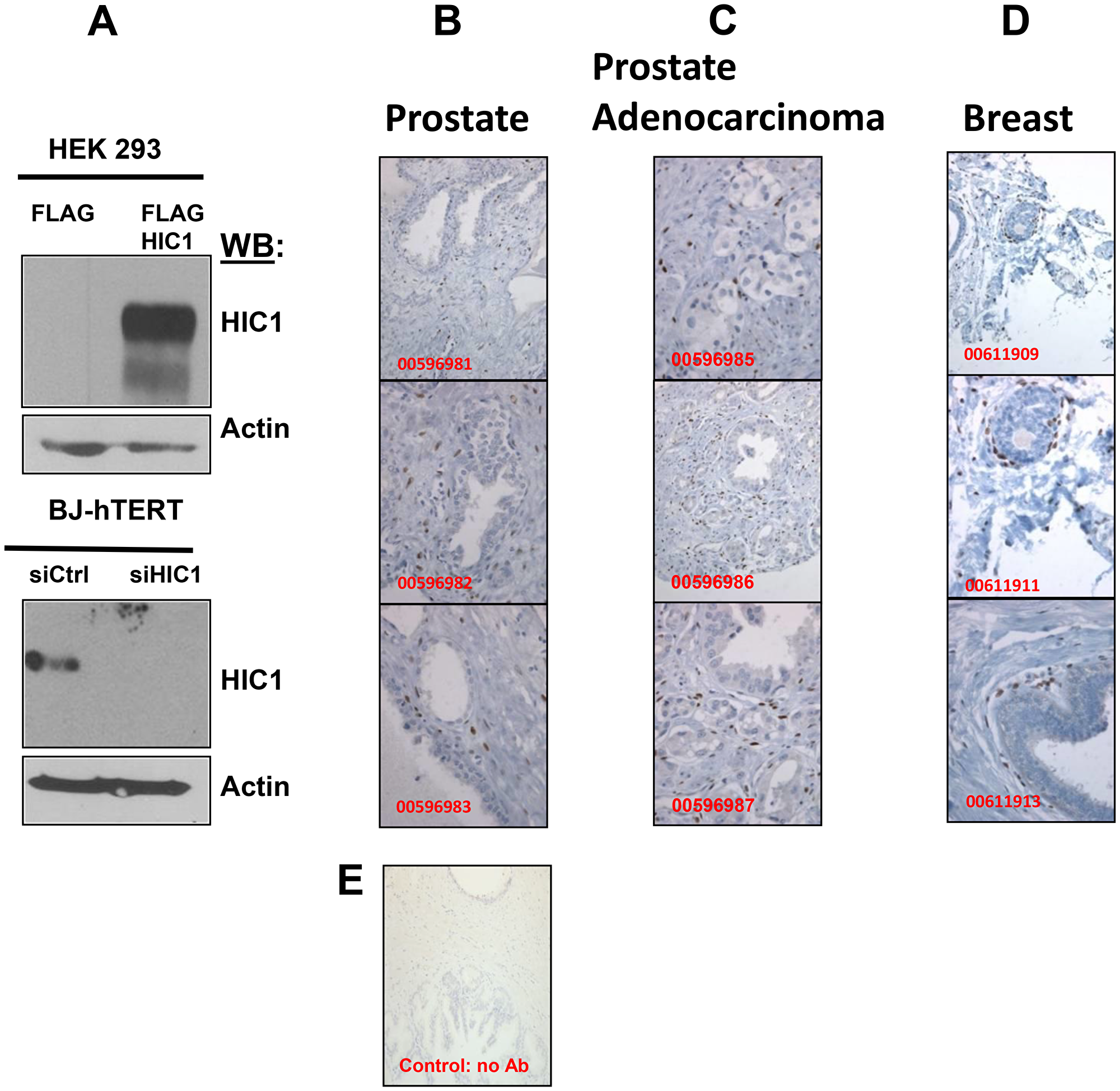 Immunohistochemical analyses of HIC1 expression in normal human prostate and breast tissues as well as in human PCa tissues.
