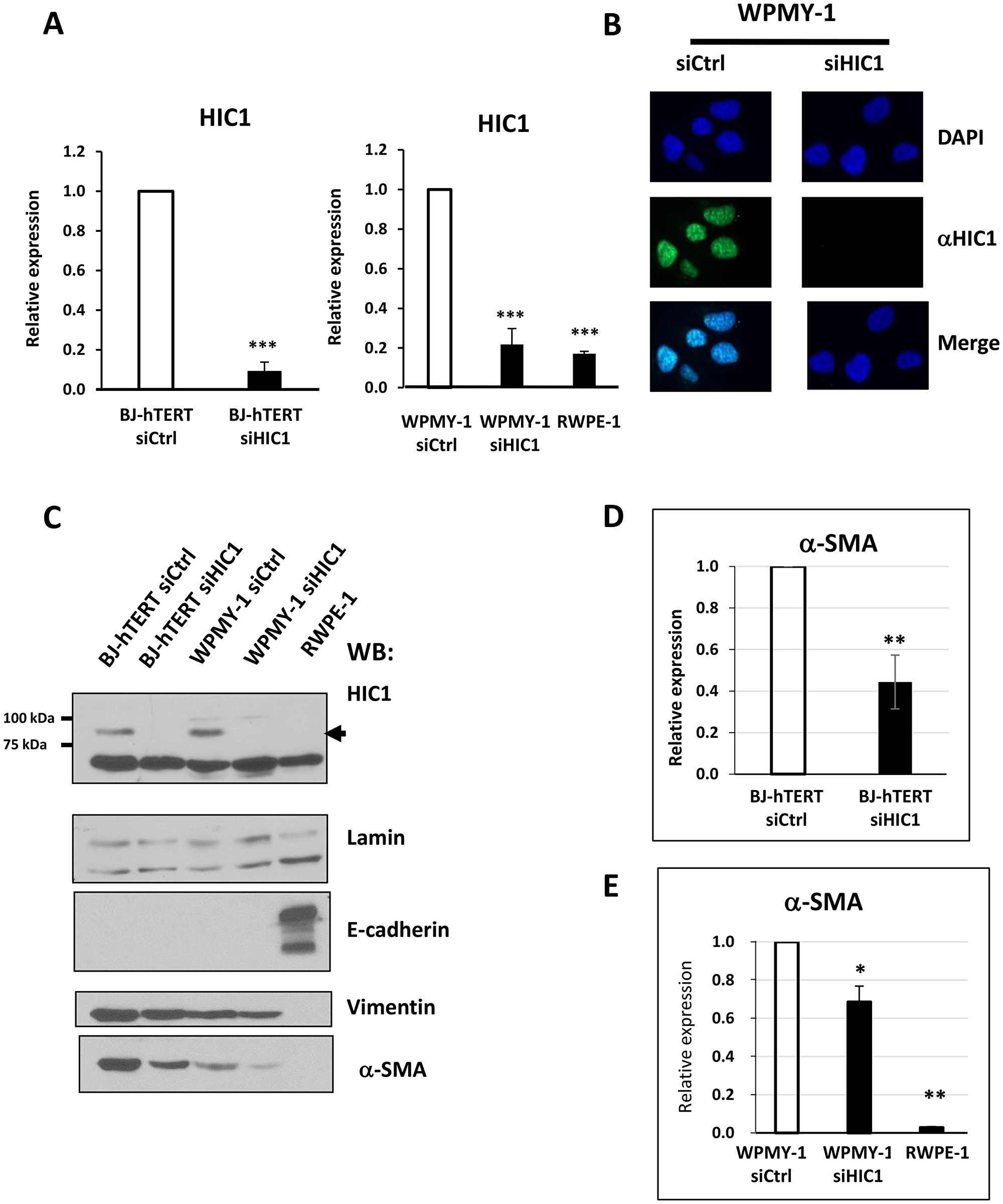 Analyses of HIC1 expression in the myofibroblastic cell line WPMY-1 compared to the epithelial cell line RWPE1.