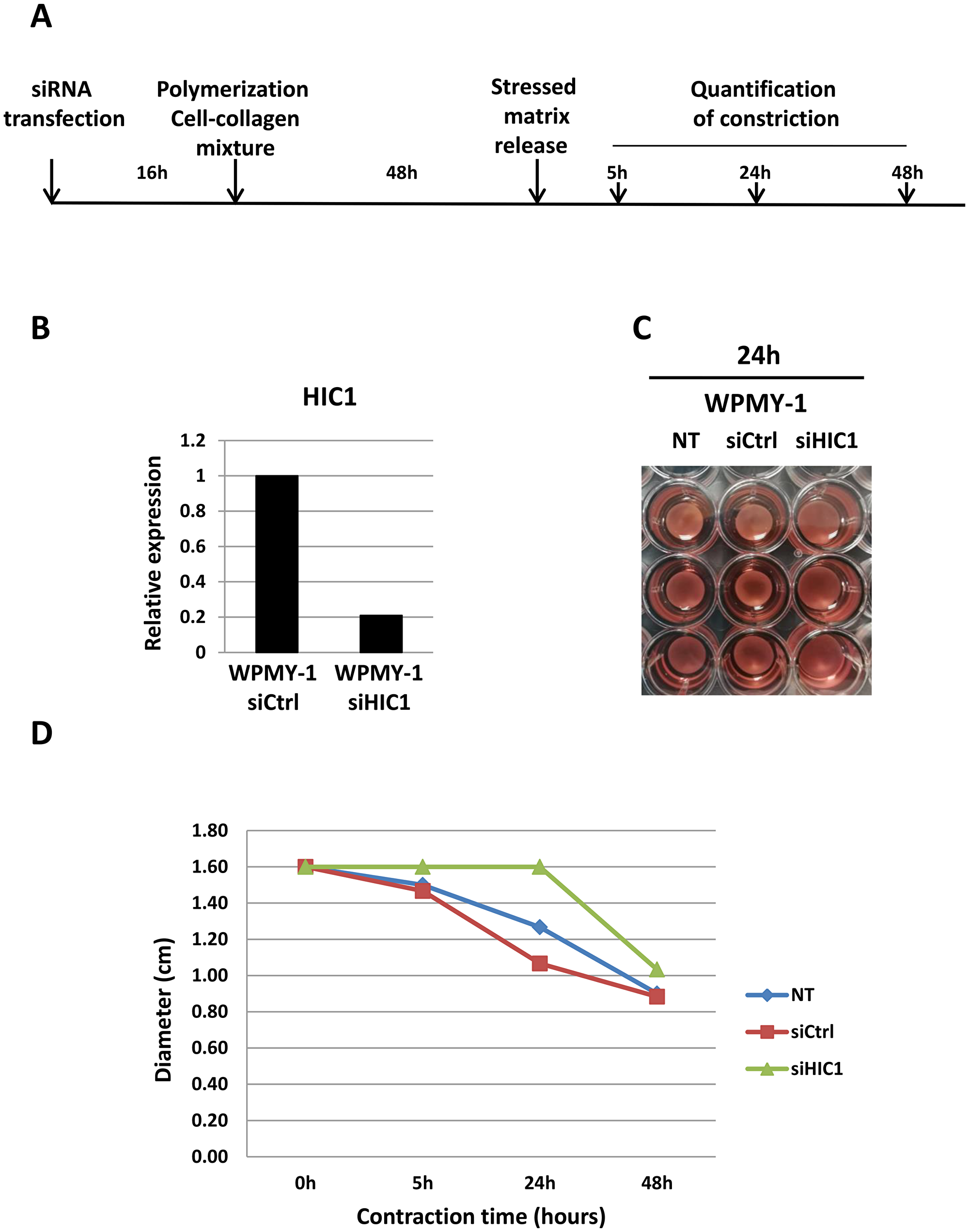 HIC1 inactivation impairs the contractility of the myofibroblastic cell line WPMY-1.