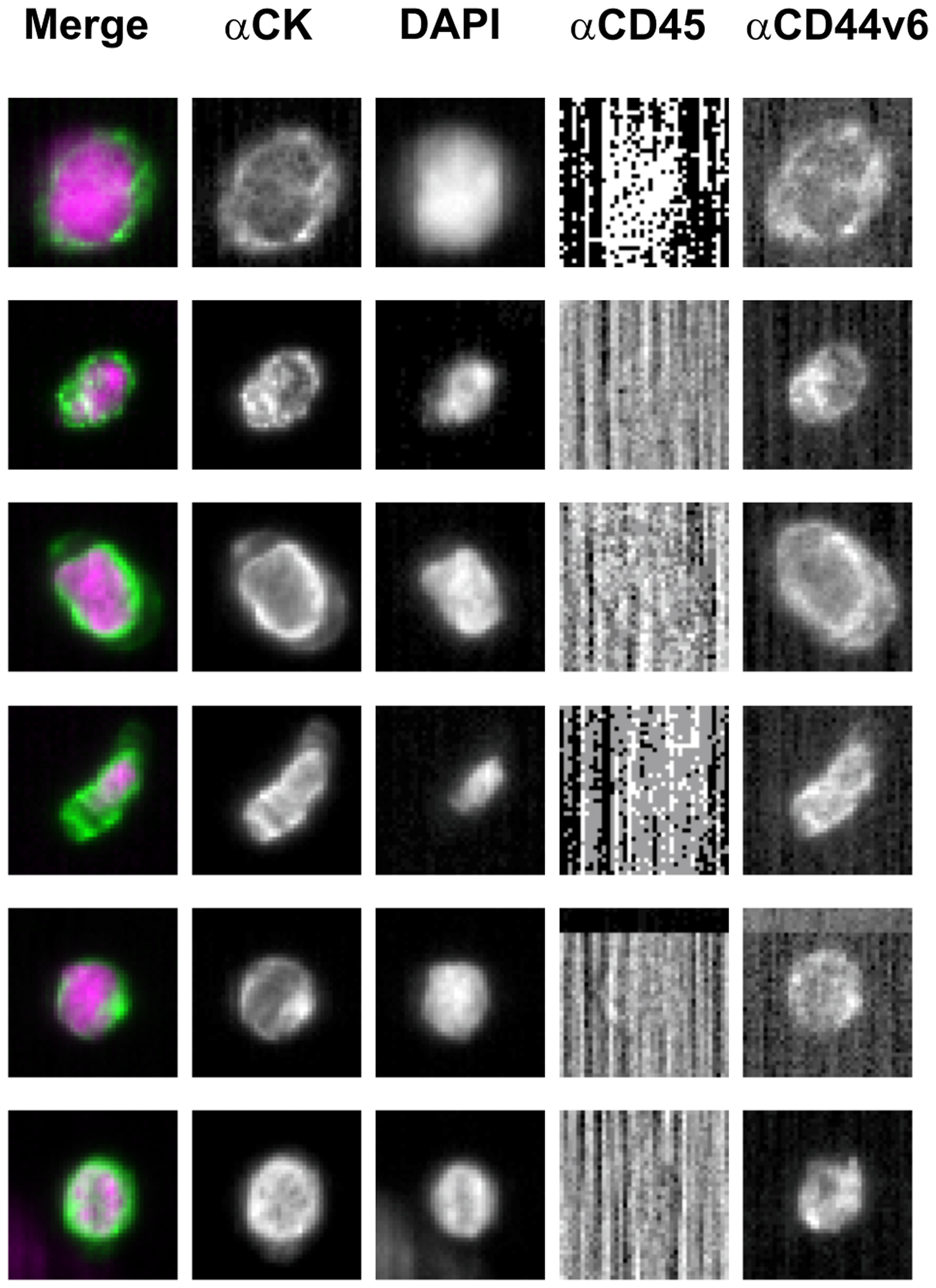 Representative images of CD44v6-positive circulating tumor cells isolated from one metastatic colorectal patient.