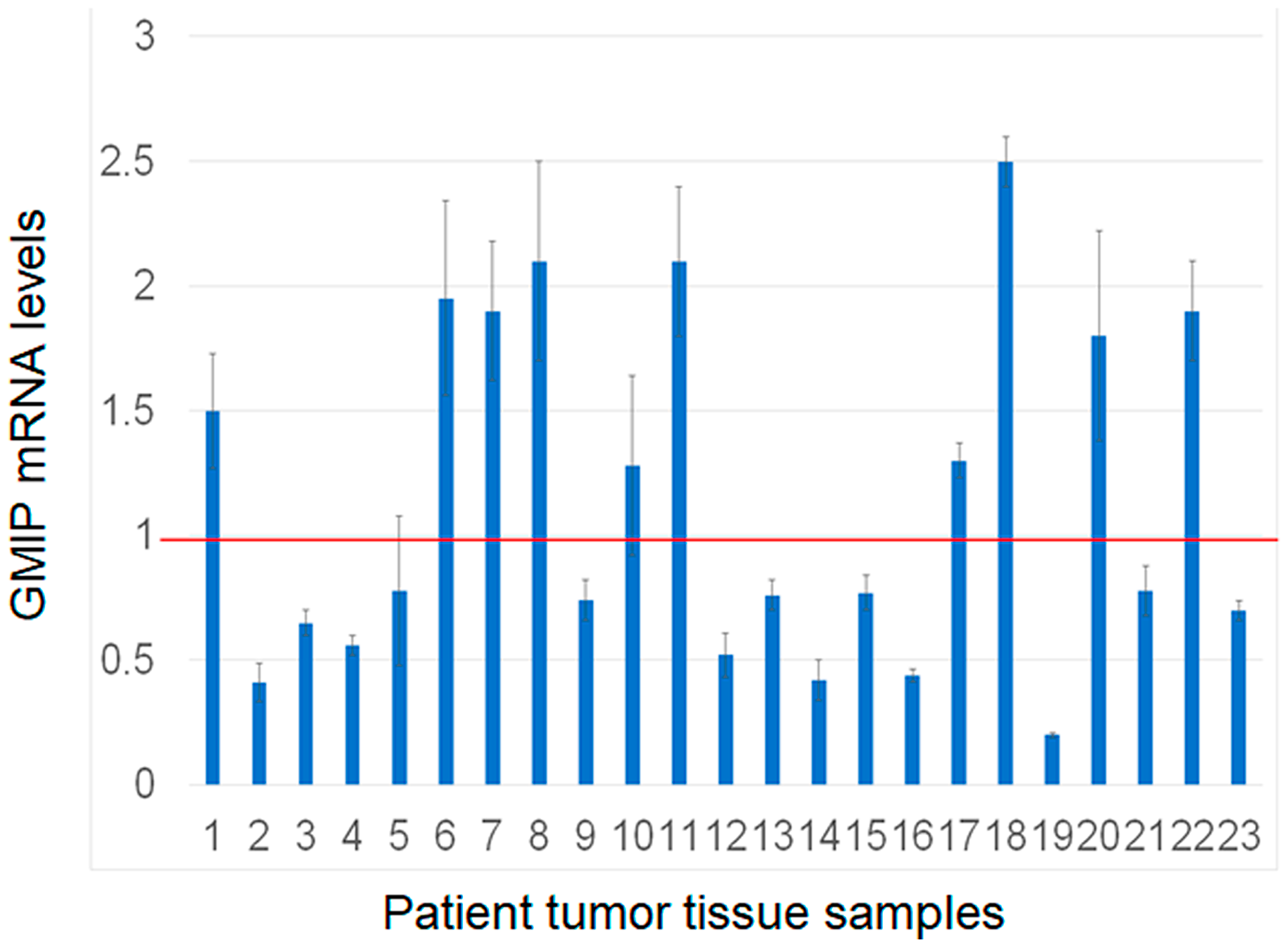Assessment of GMIP gene expression by RT-PCR in human lung cancer and matched normal tissue samples (n = 23).