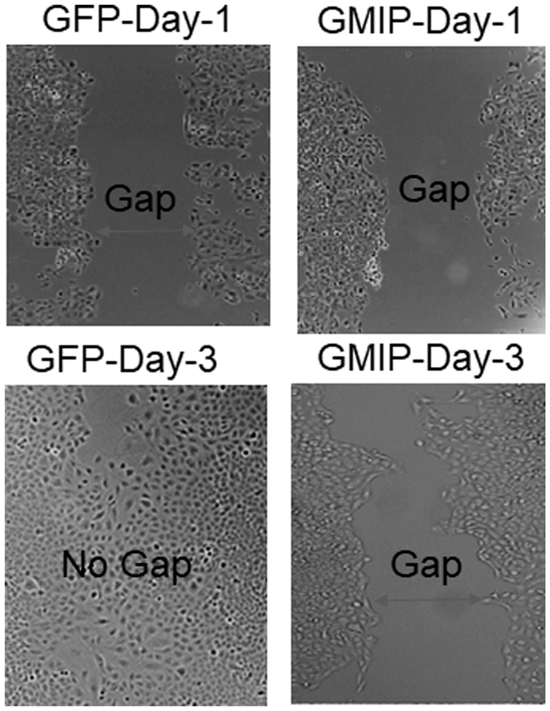 GMIP over-expression inhibits lung cancer cell migration.