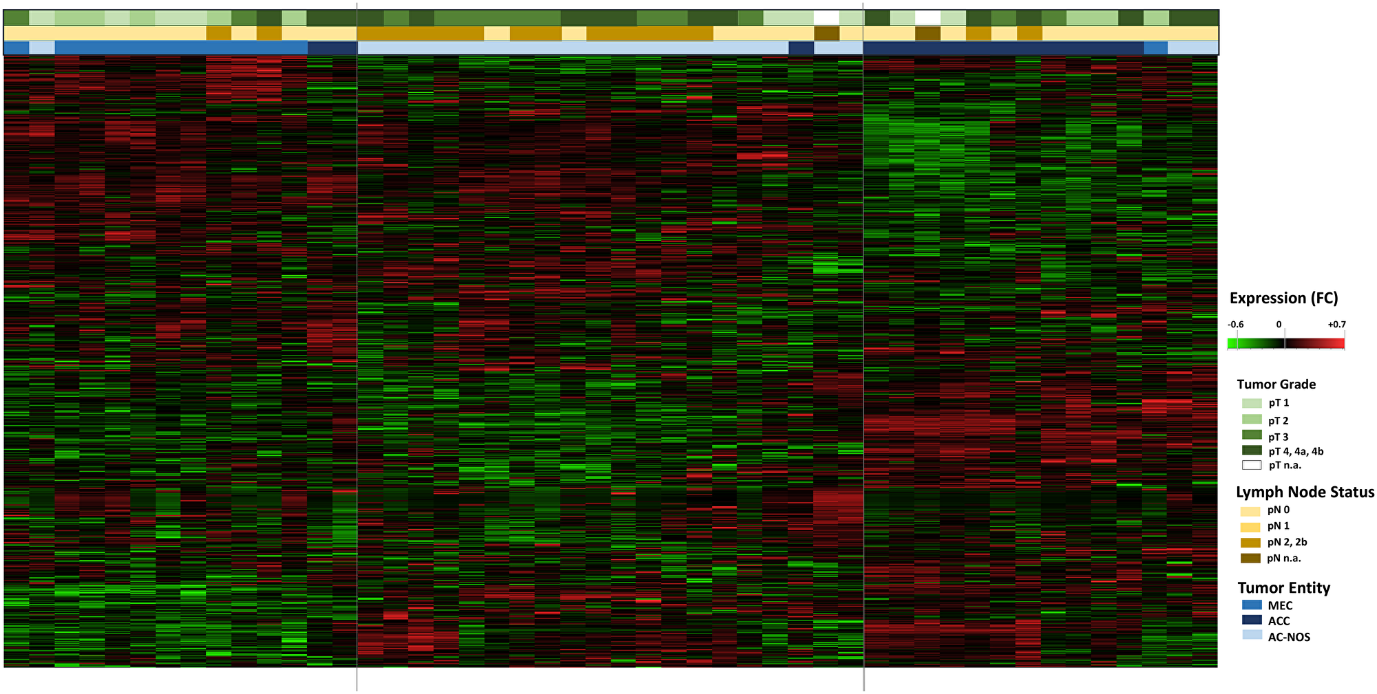 Hierarchical cluster Heatmap Analysis of tumor entities with tumor growth (pT) and lymphogenic metastasis (pN): All tumor samples of the 47 patients are shown (n = 47, x-axis).