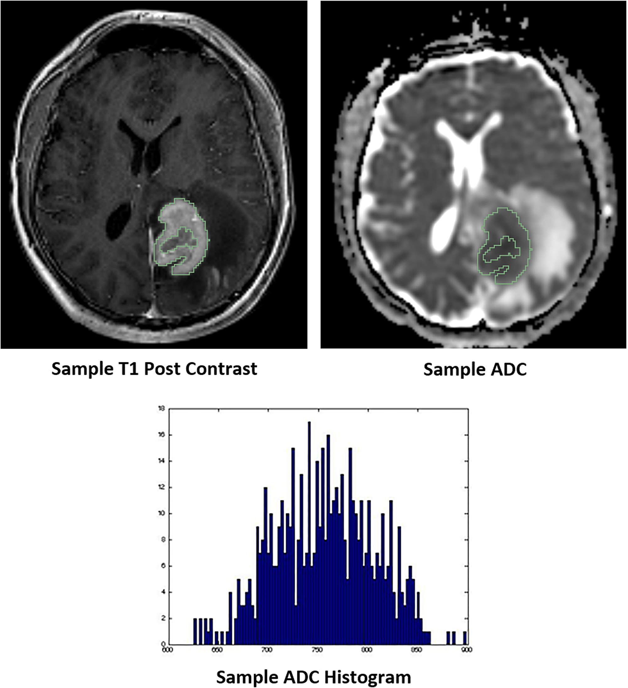 Representative images of whole tumor volume segmentation of the co-registered T1 post-contrast sequence and apparent diffusion coefficient (ADC) map, yielding the corresponding ADC histogram distribution utilized for data analysis.
