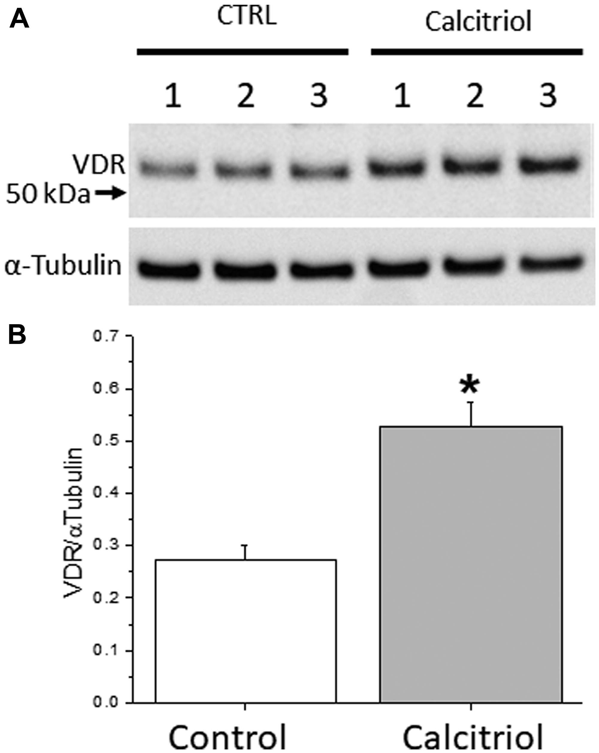 Vitamin D receptor (VDR) expression in cultured ovarian surface epithelial (OSE) cells.