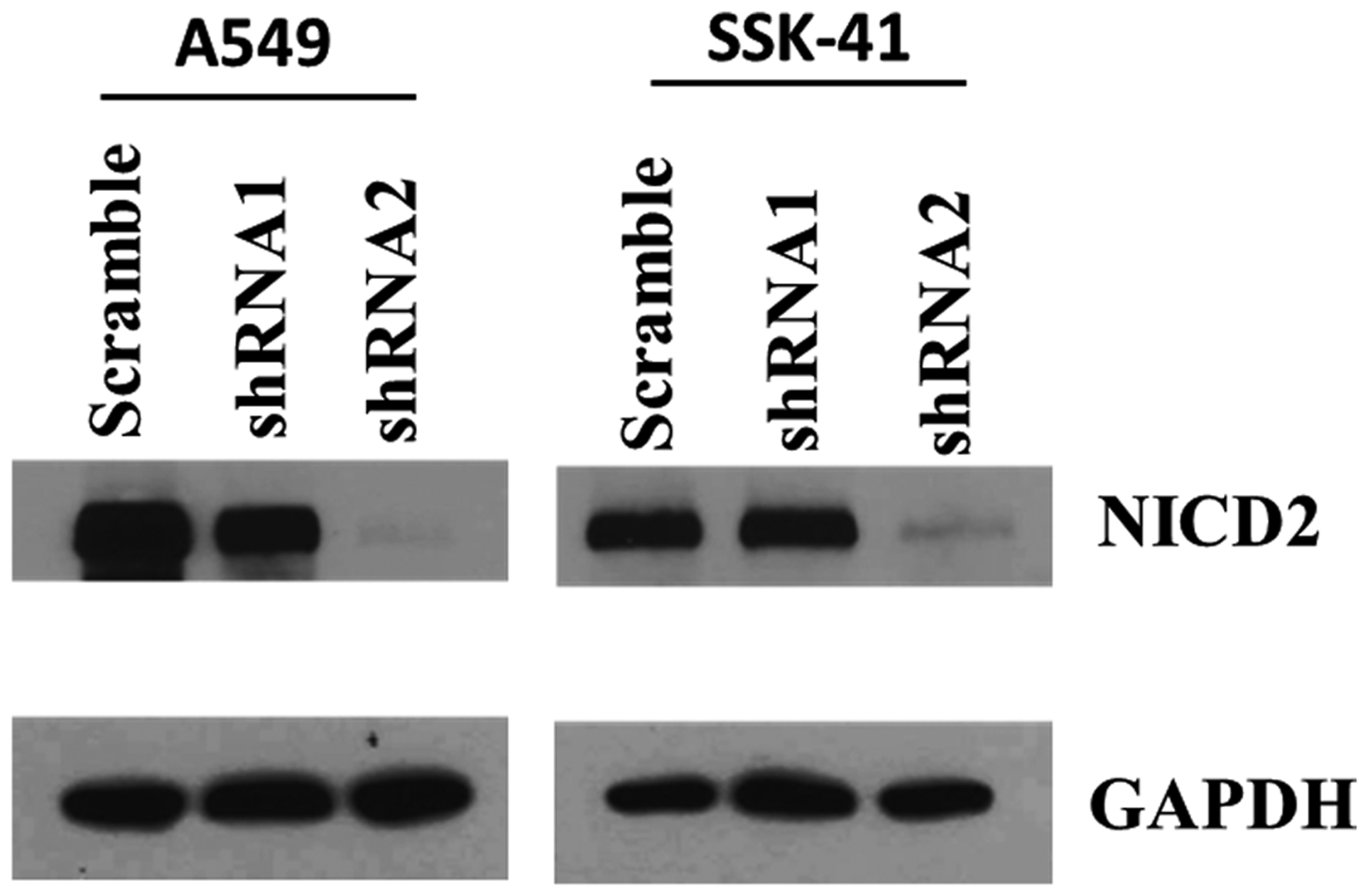 Efficiency of Notch2 knockdown in A549 and SSK-41 cells by lentiviral vectors bearing shRNA.