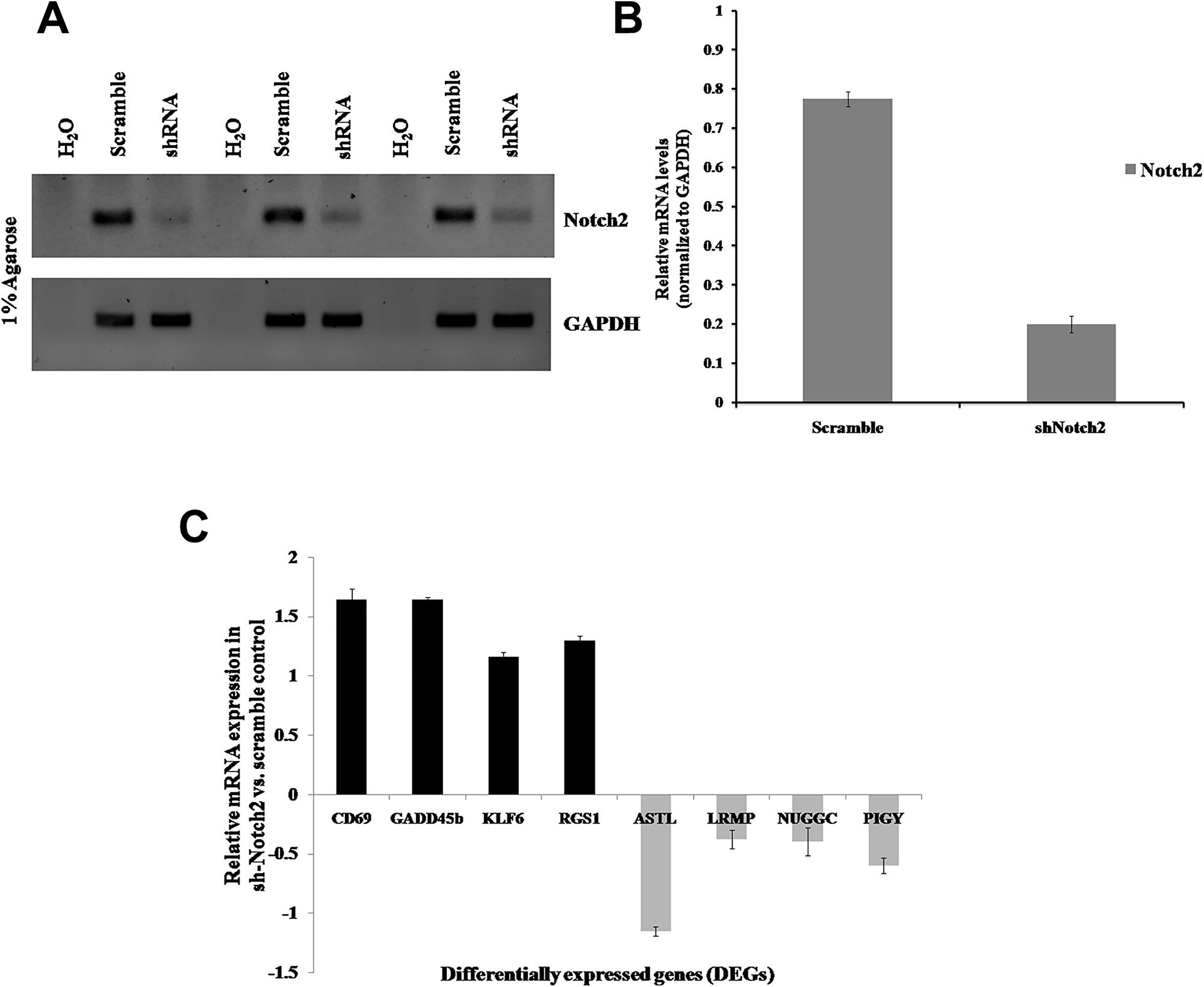 Validation of DEGs in B-cell lymphoma (JM1).