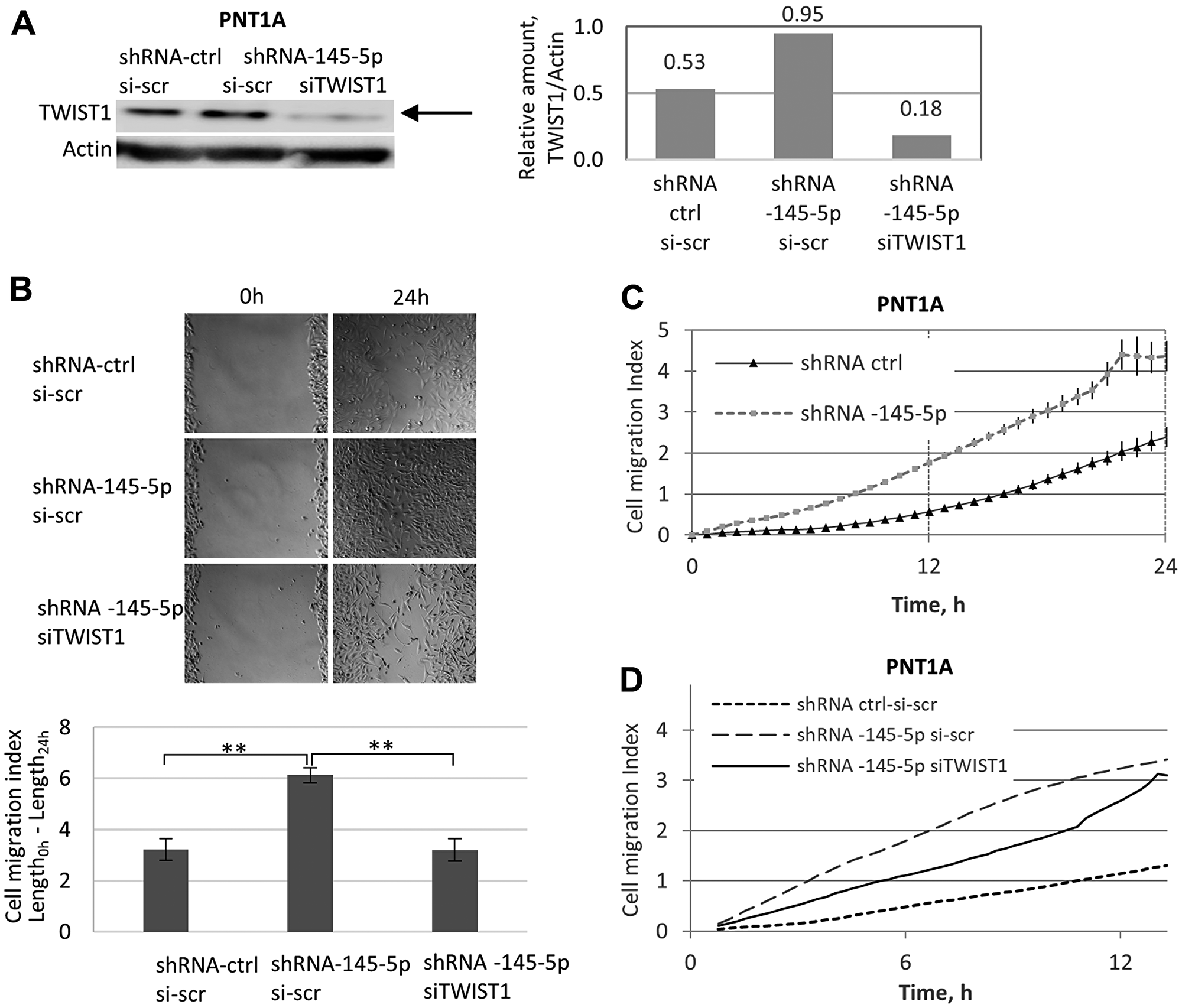 Opposing roles of shRNA-145-5p and TWIST1 siRNA on PNT1A cell migration.