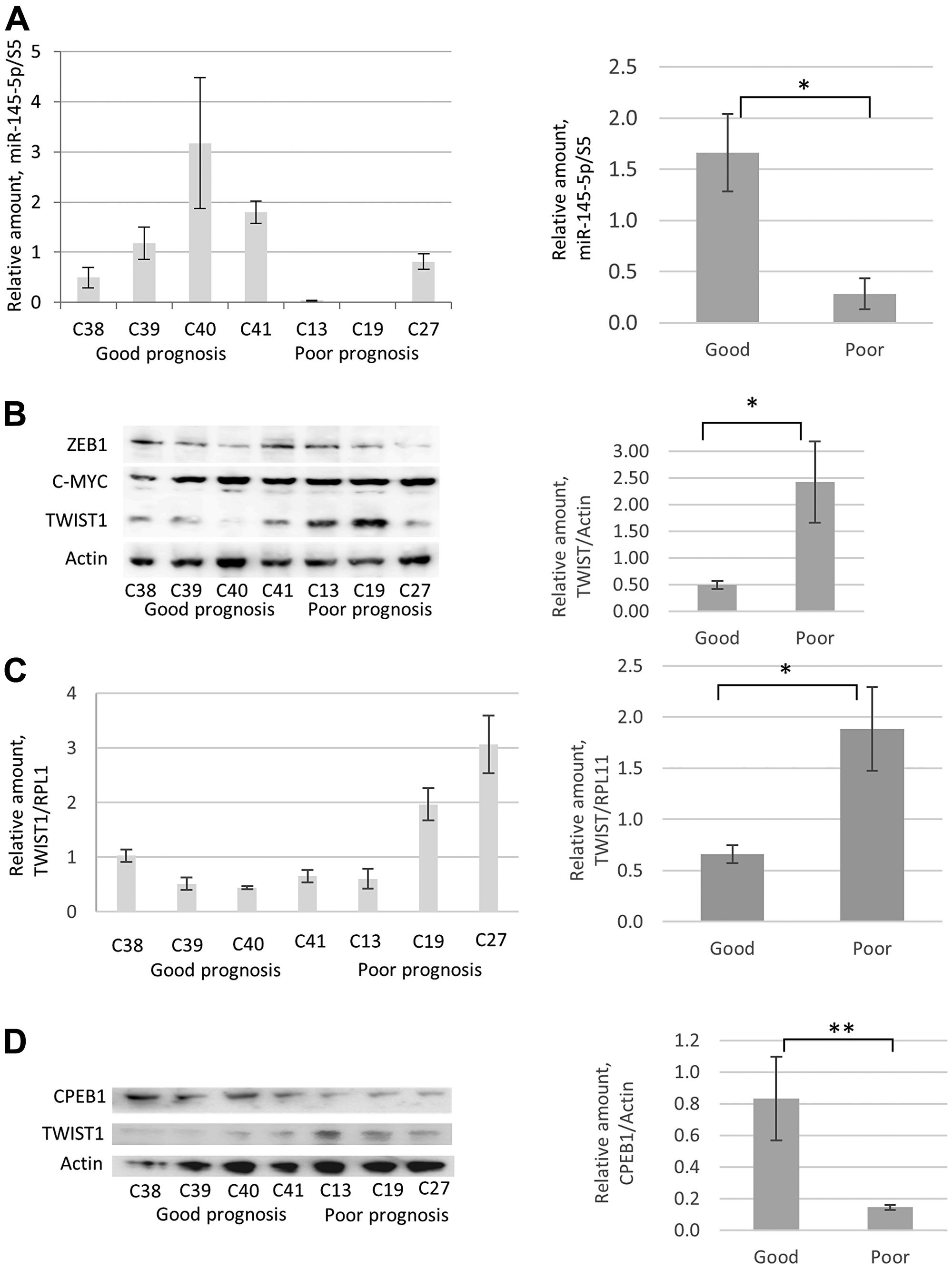 Comparative analyses of miR-145-5p, TWIST1, and CPEB1 expression in prostate cancer cell lines derived from PCa tumor samples from patients with good and poor prognoses.