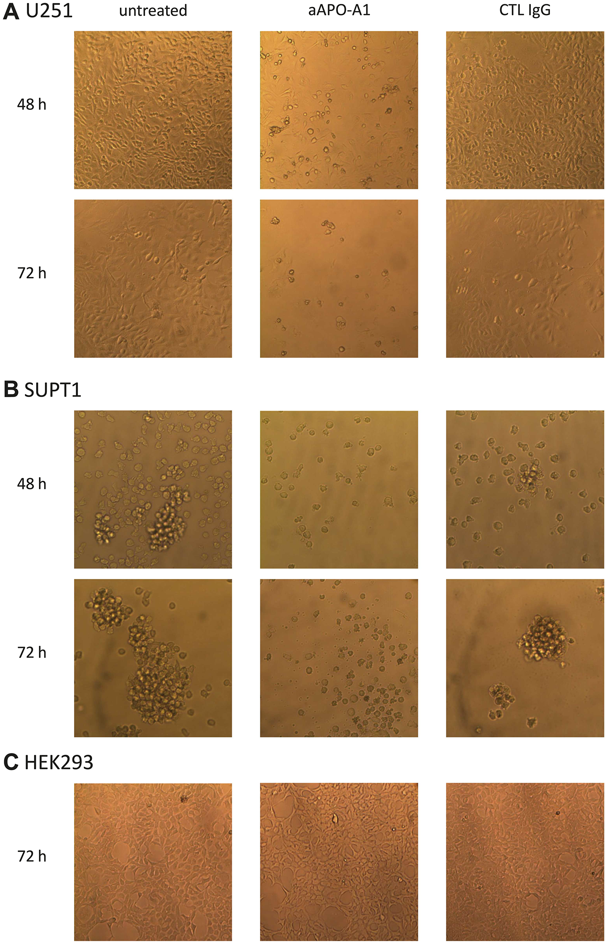 Morphology change of cells cultured in presence of anti-apoA-1 IgG or control isotype IgG.