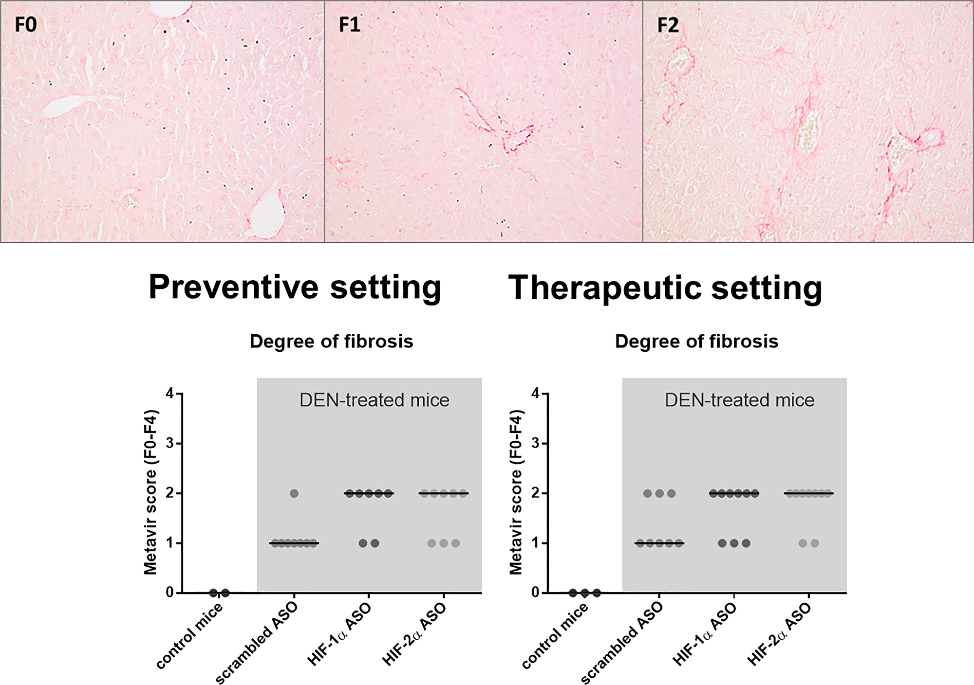 Effect of preventive and therapeutic HIF-1α and HIF-2α ASO treatment on liver fibrosis in DEN-induced HCC mice.