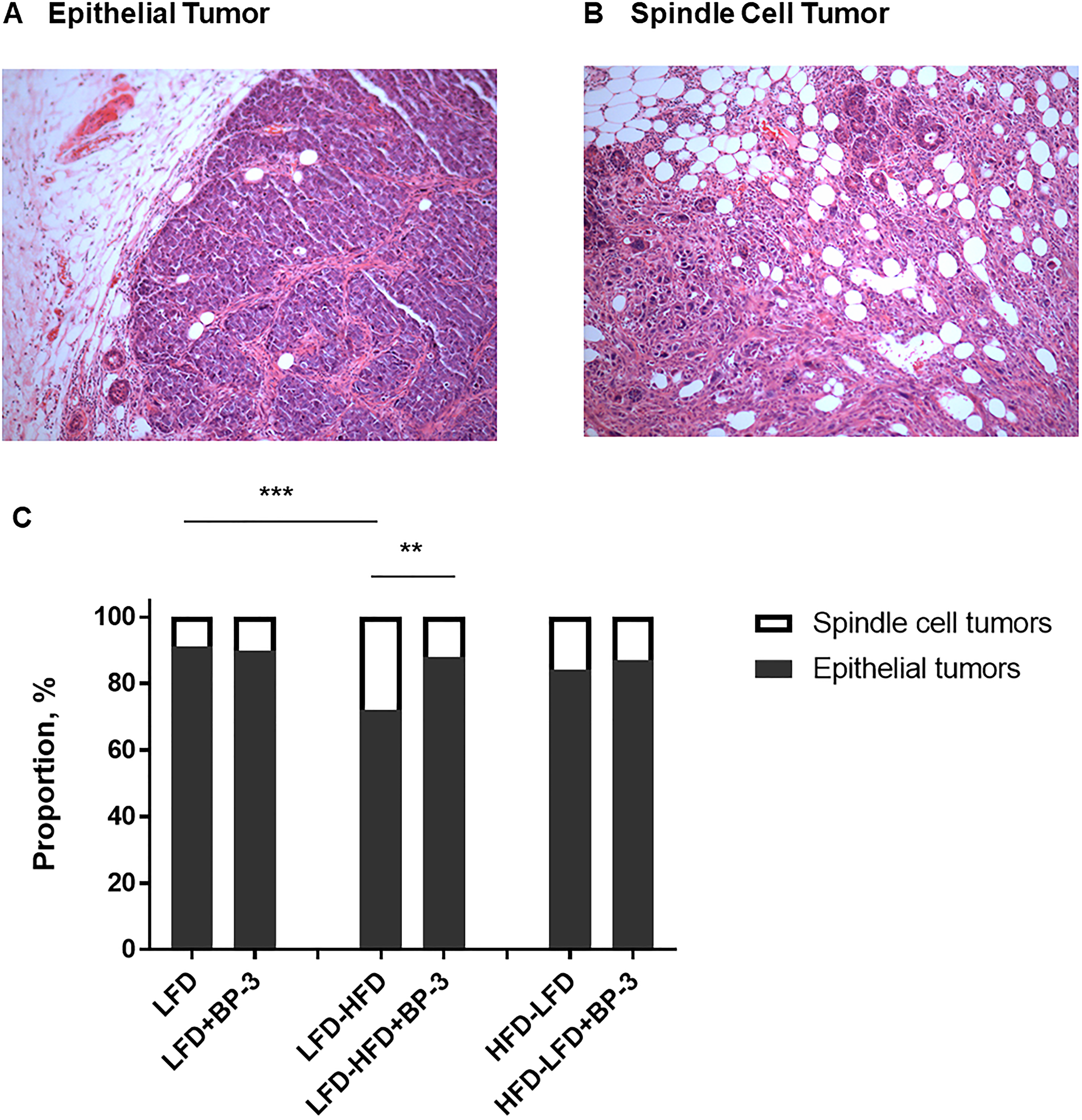 BP-3 increased the proportion of epithelial tumors in mice fed an adult-restricted HFD.