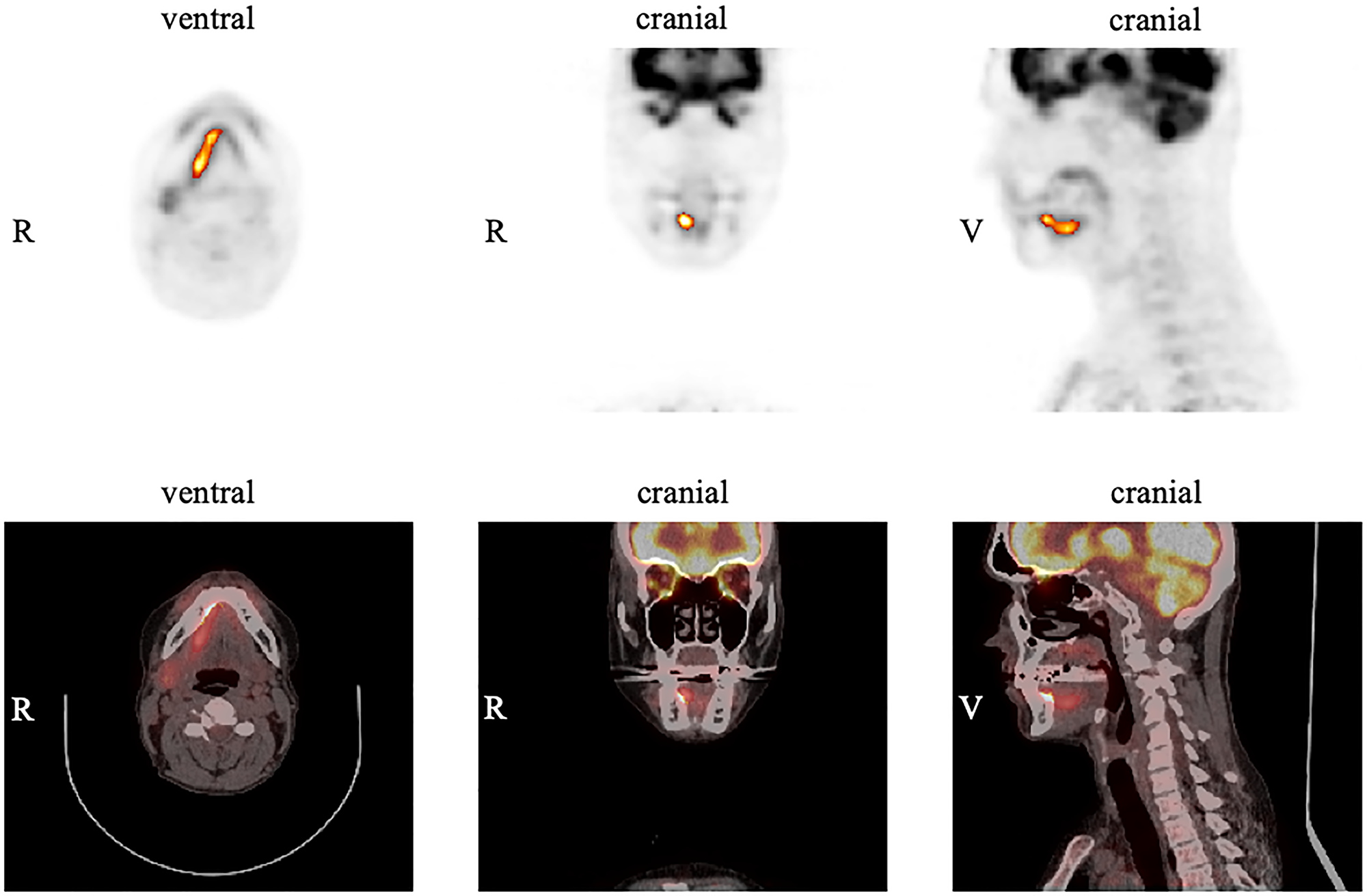 Example of measurements in FDG PET for the primary tumor using the software ROVER.