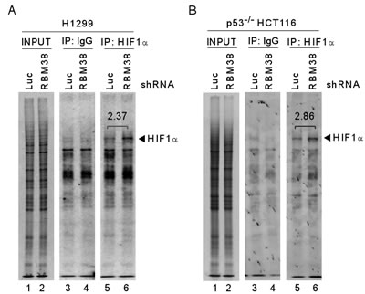 Knockdown of RBM38 enhances HIF1α expression through mRNA translation.