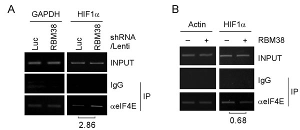 RBM38 prevents eIF4E from binding HIF1α transcript.
