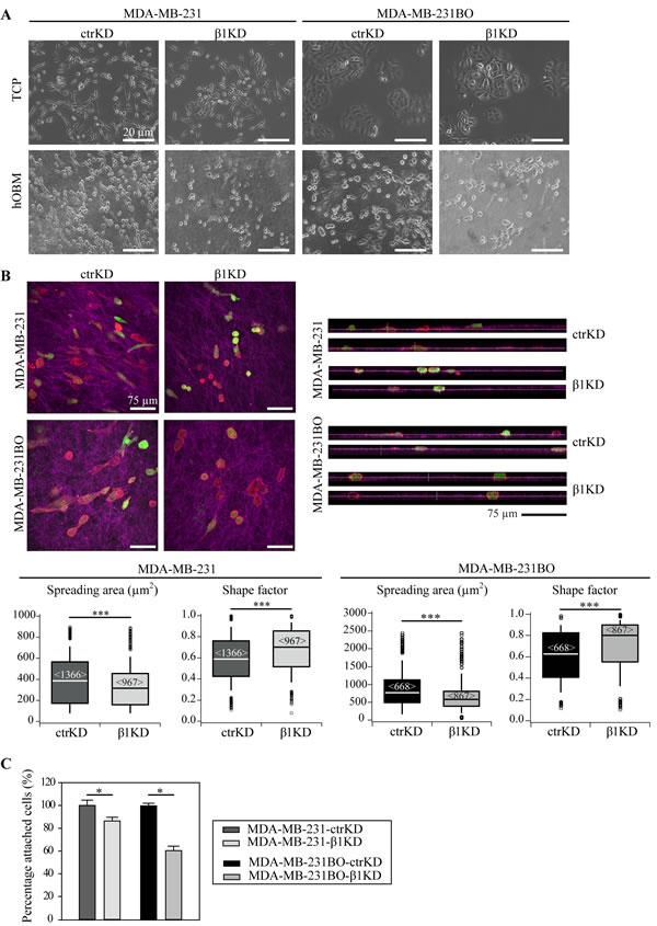 β1 integrins mediate BC cell spreading and attachment in a human-bone like microenvironment