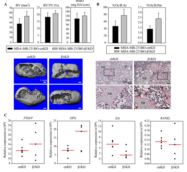 β1 integrins do not influence BC-induced bone resorption and osteoclast activation