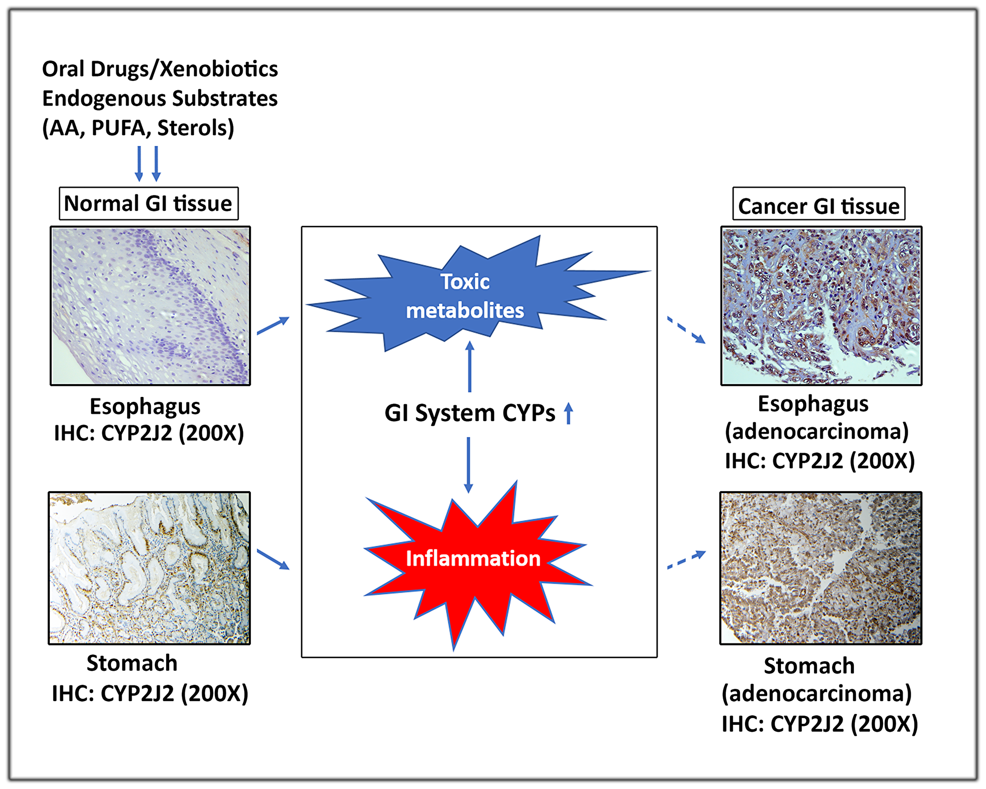 A schematic representation depicting the role of extrahepatic GI system CYPs in carcinogenesis.