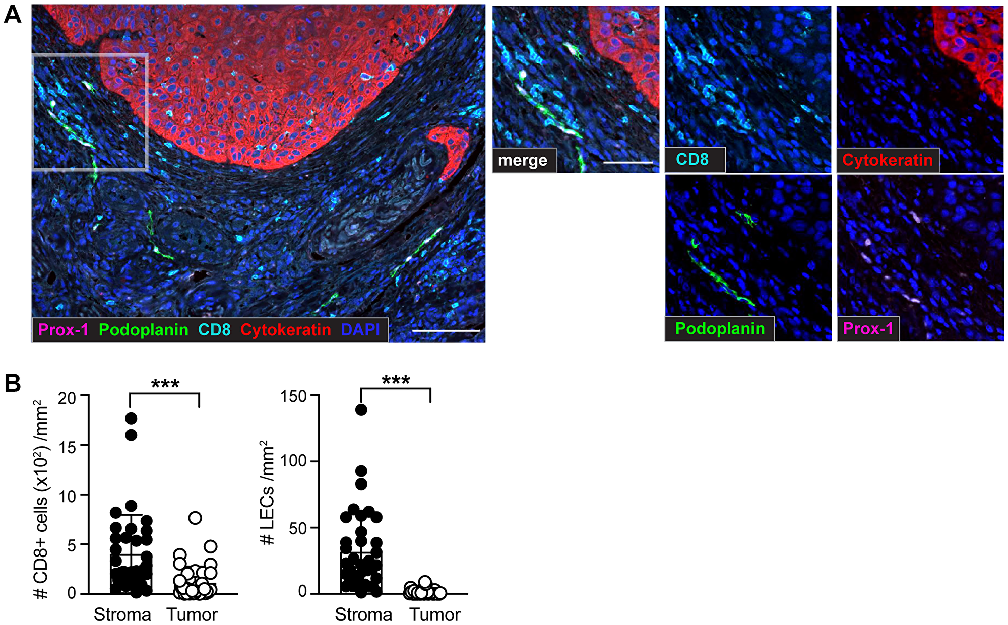 Identification of CD8+ T cells and lymphatic endothelial cells (LECs) within the tumor microenvironment (TME) of sSCC sections using multiplex immunohistochemistry (IHC).