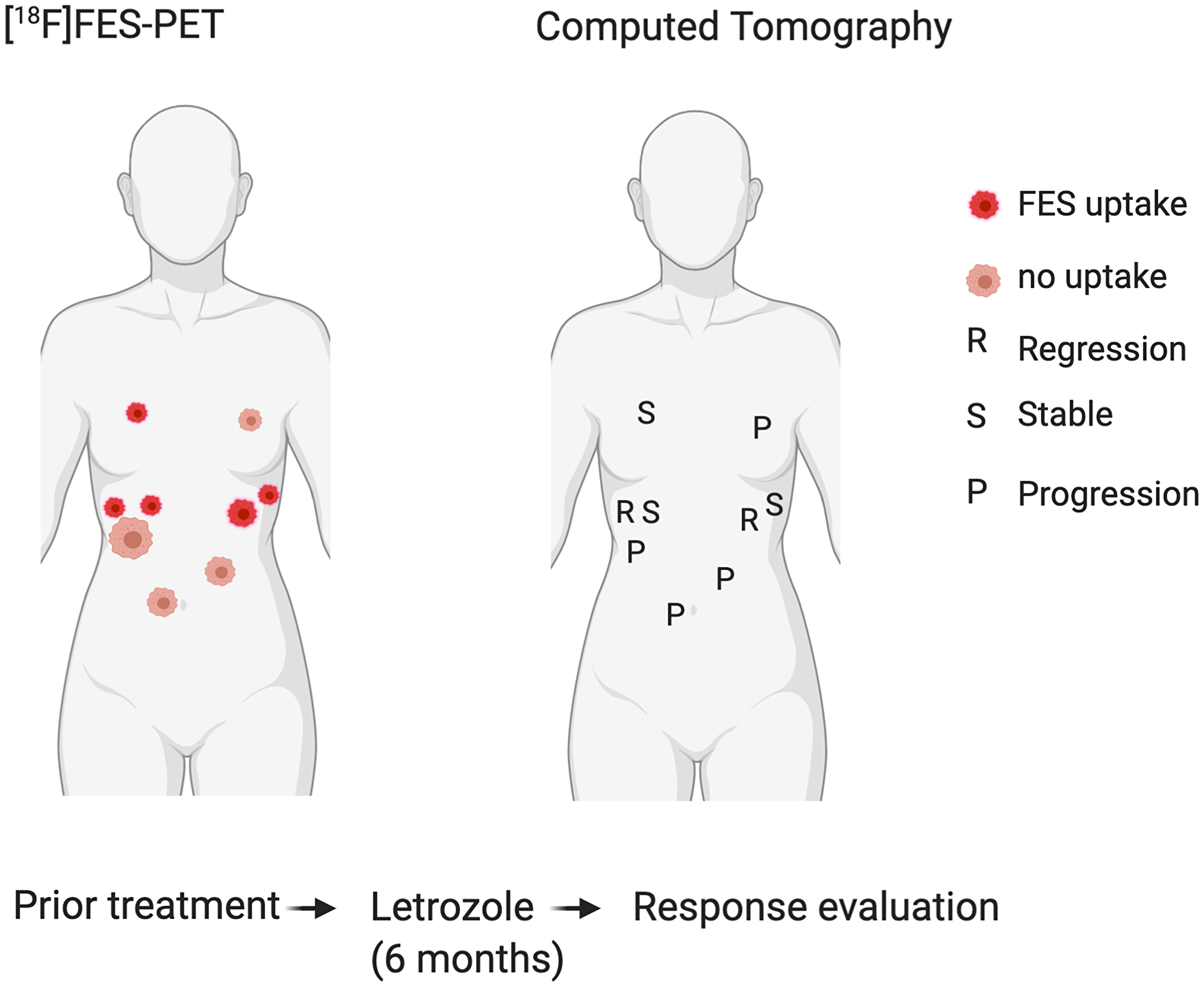 Correlation of FES positive and negative tumour locations (left) with response to hormone treatment (right).