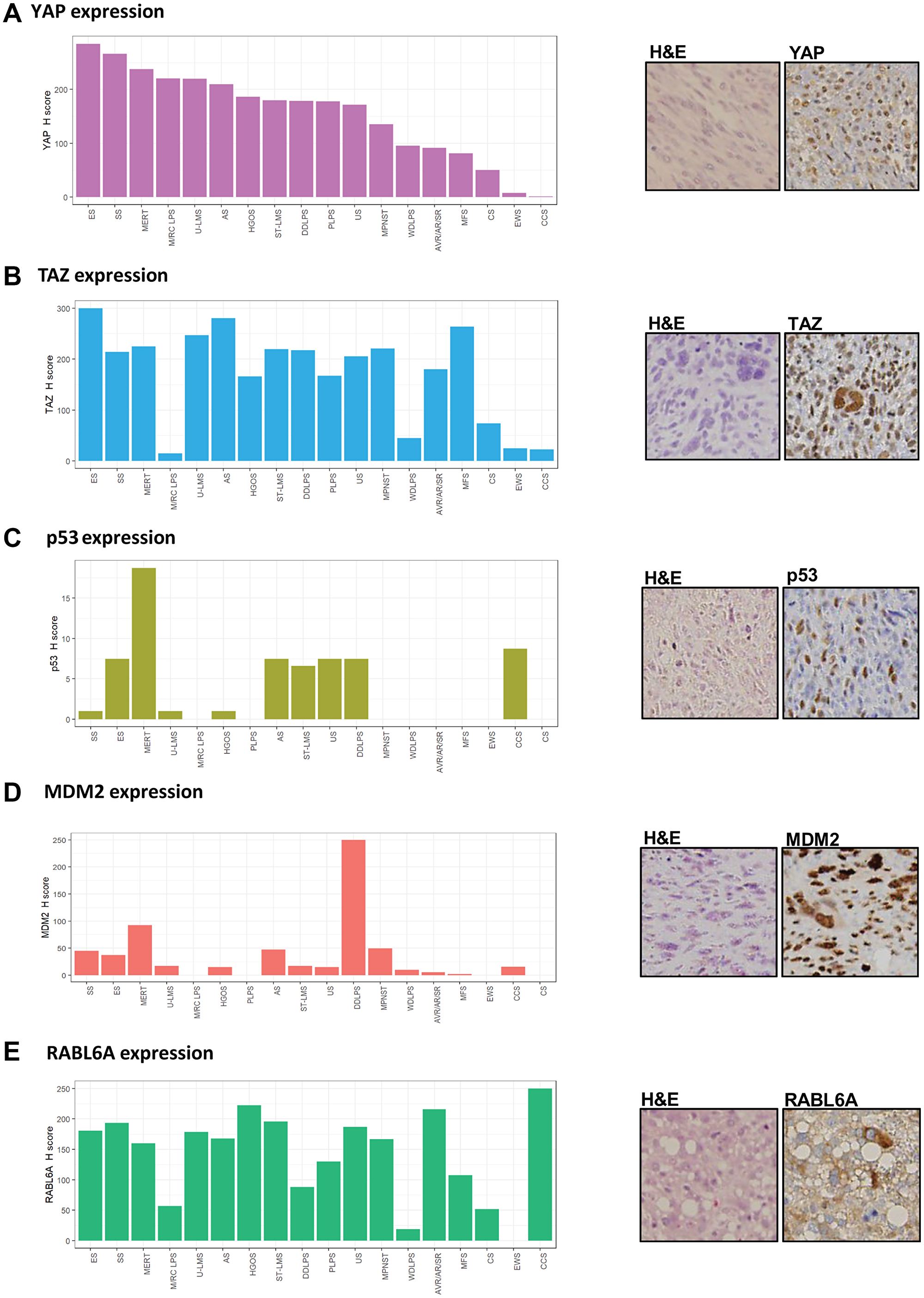 YAP, TAZ, p53, MDM2 and RABL6A are widely expressed in various sarcomas.
