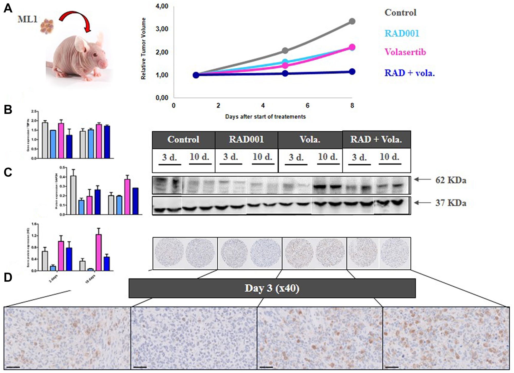 PD study in ML1 PDX and PLK1 expression.
