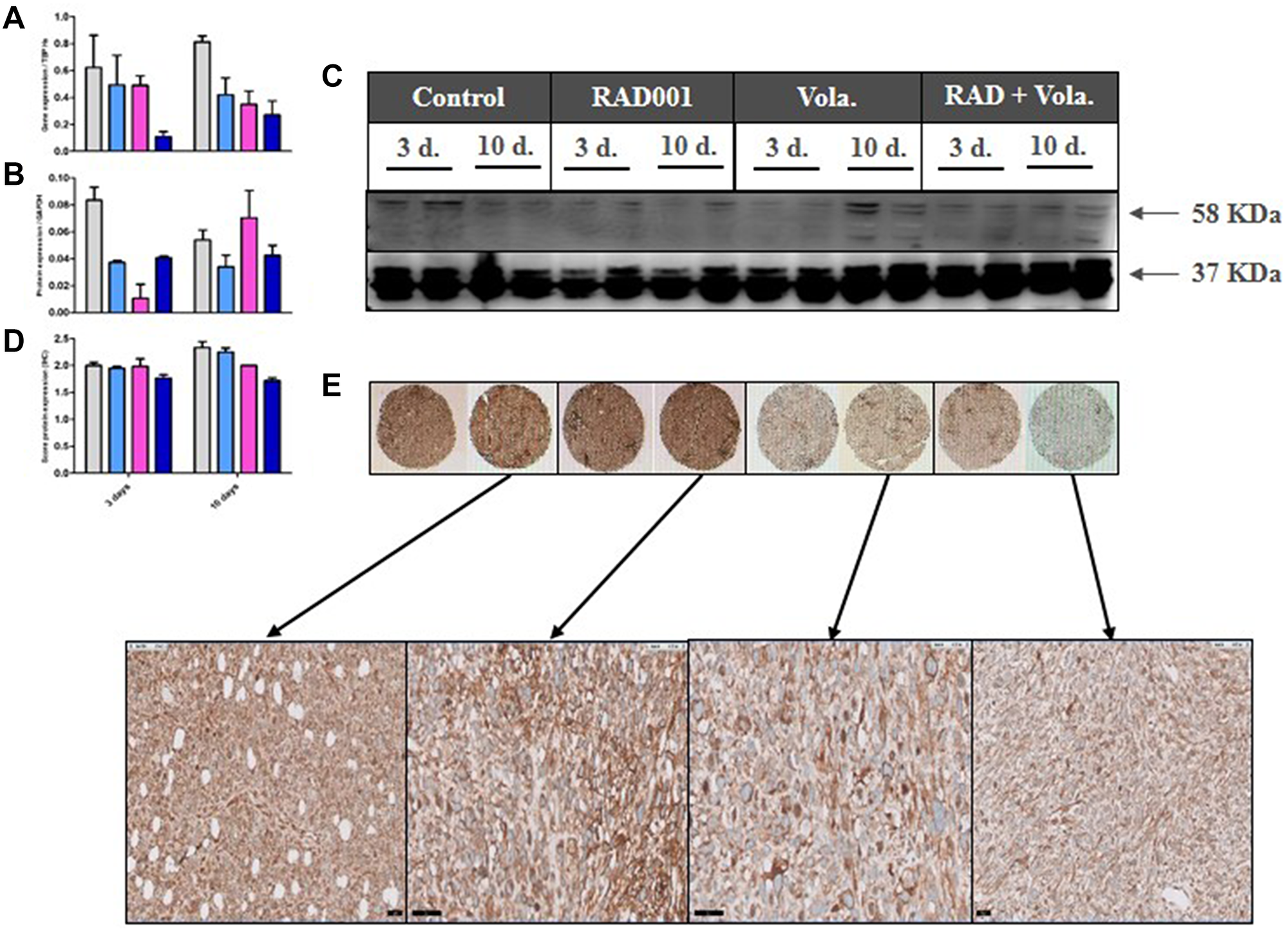 PD study in ML1 PDX and CAIX expression.