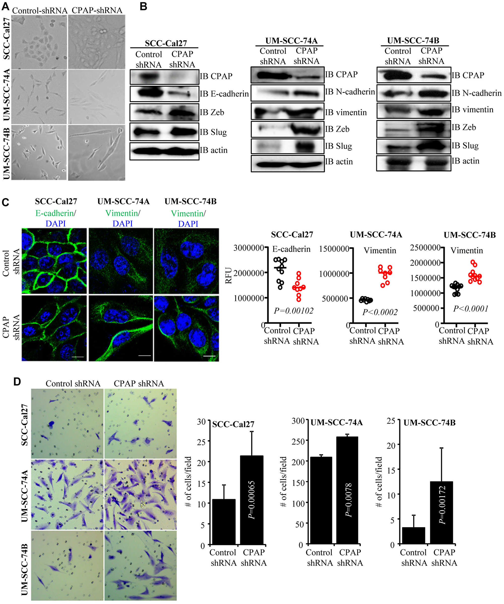 CPAP depleted cells show spontaneous EMT-like morphology and upregulated mesenchymal protein expression.