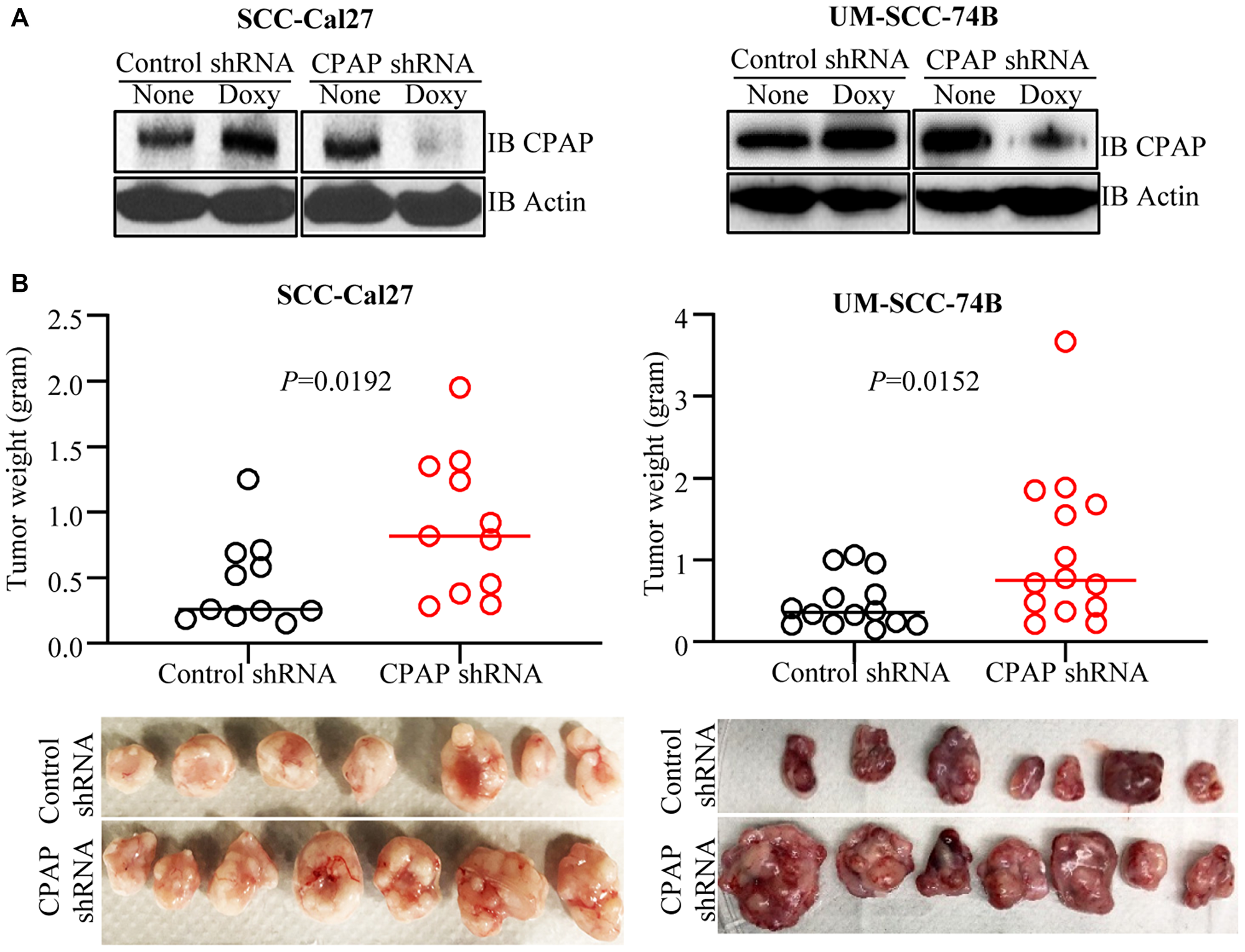 CPAP depletion enhances the tumorigenic properties of OSCC cell lines.