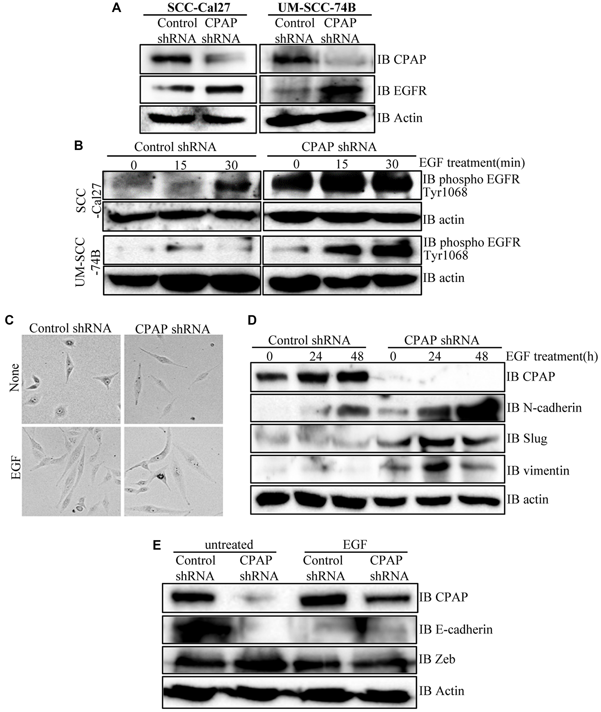 CPAP depletion in OSCC cells causes an increase in cellular levels of total and phospho-EGFR proteins, and EGF treatment enhances EMT-like features in these cells.