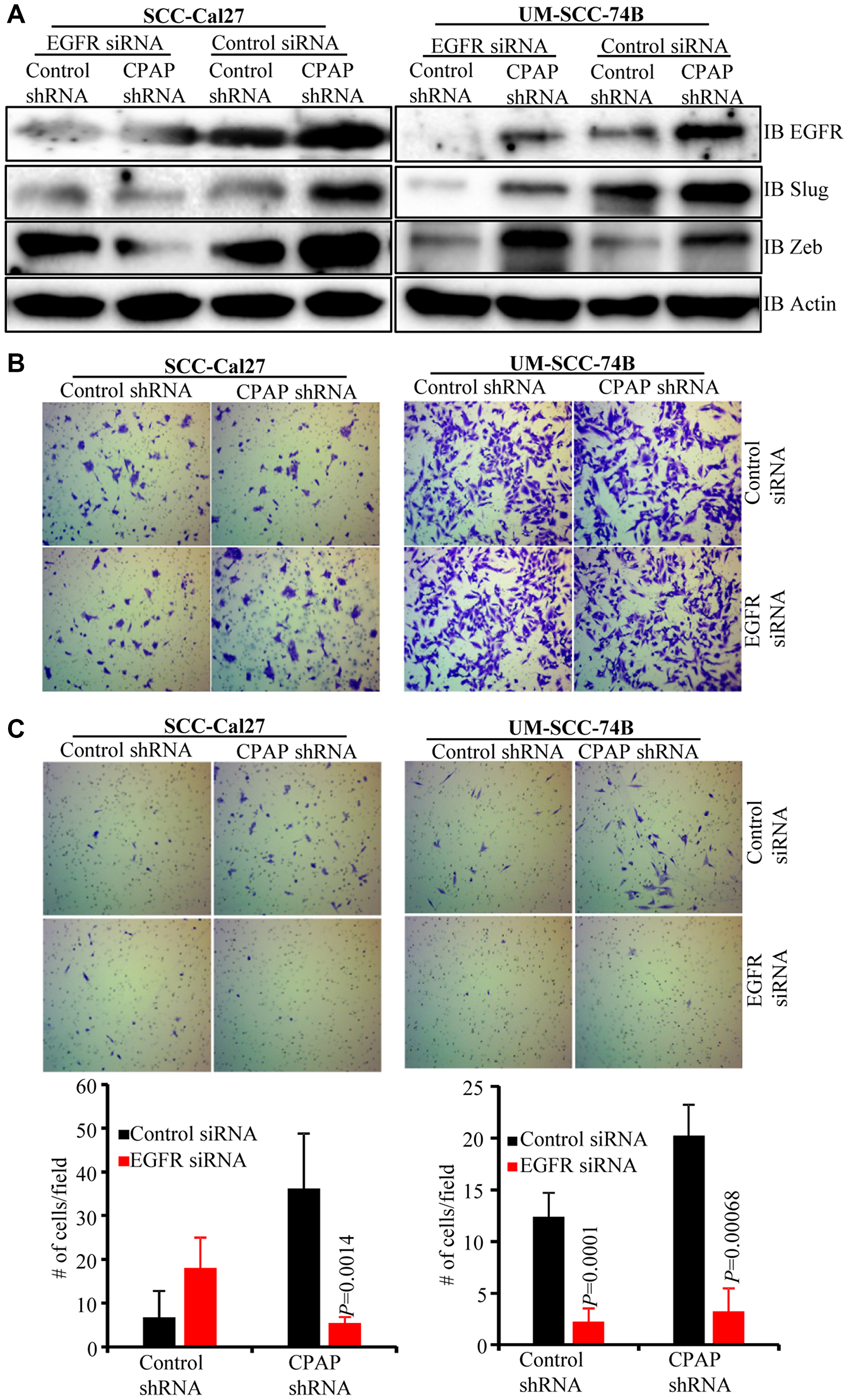 EGFR depletion diminishes the EMT phenotype and invasive property of CPAP-depleted OSCC cells.