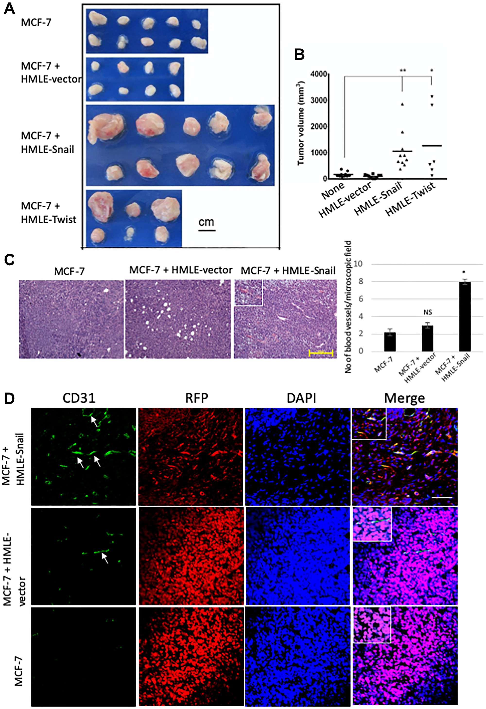 Cells that have undergone EMT promote endothelial transdifferentiation, neovascularization, and outgrowth of admixed MCF-7 cells.