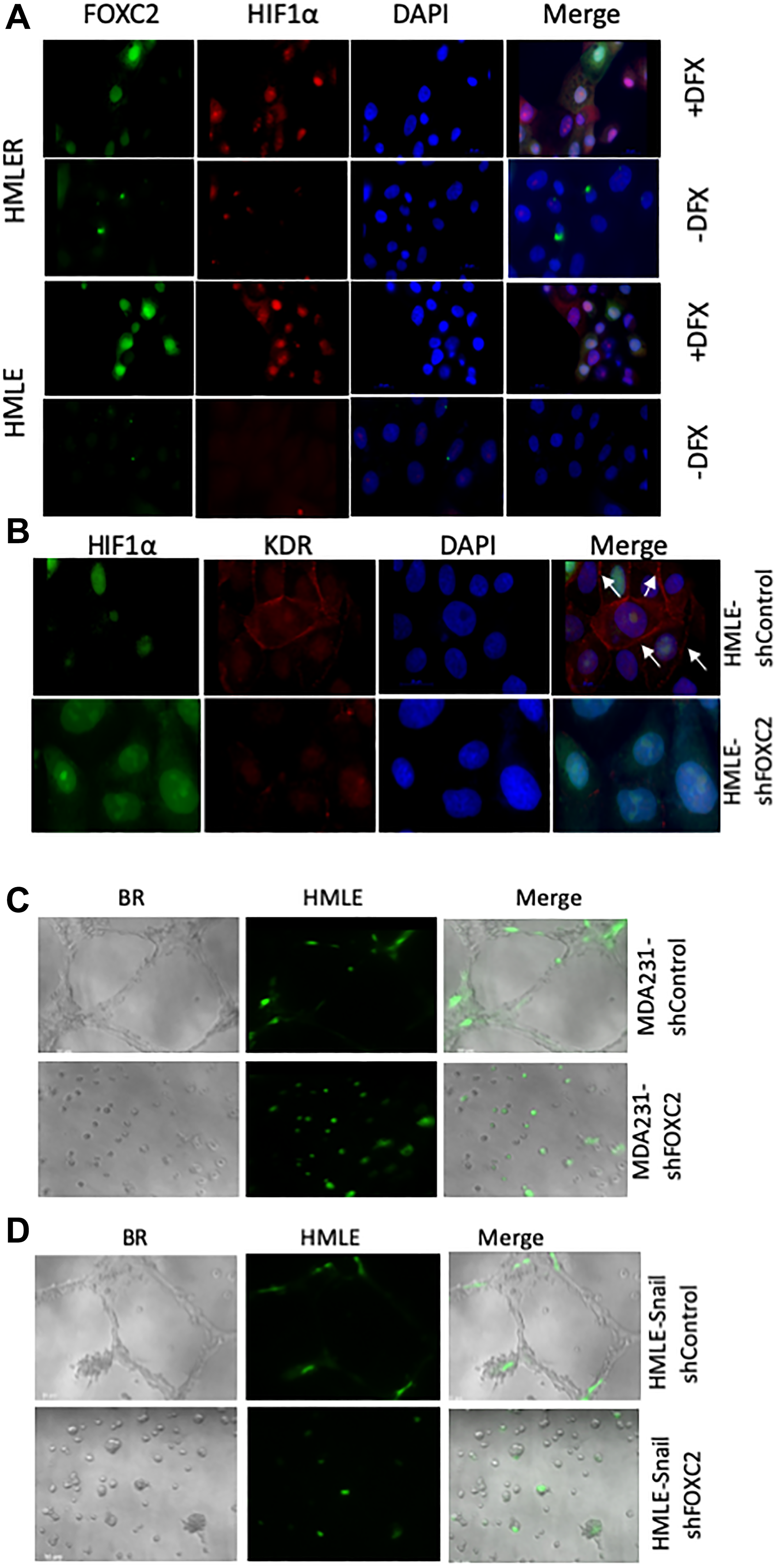 FOXC2 is necessary for the acquisition of endothelial phenotypic and functional characteristics in vitro.