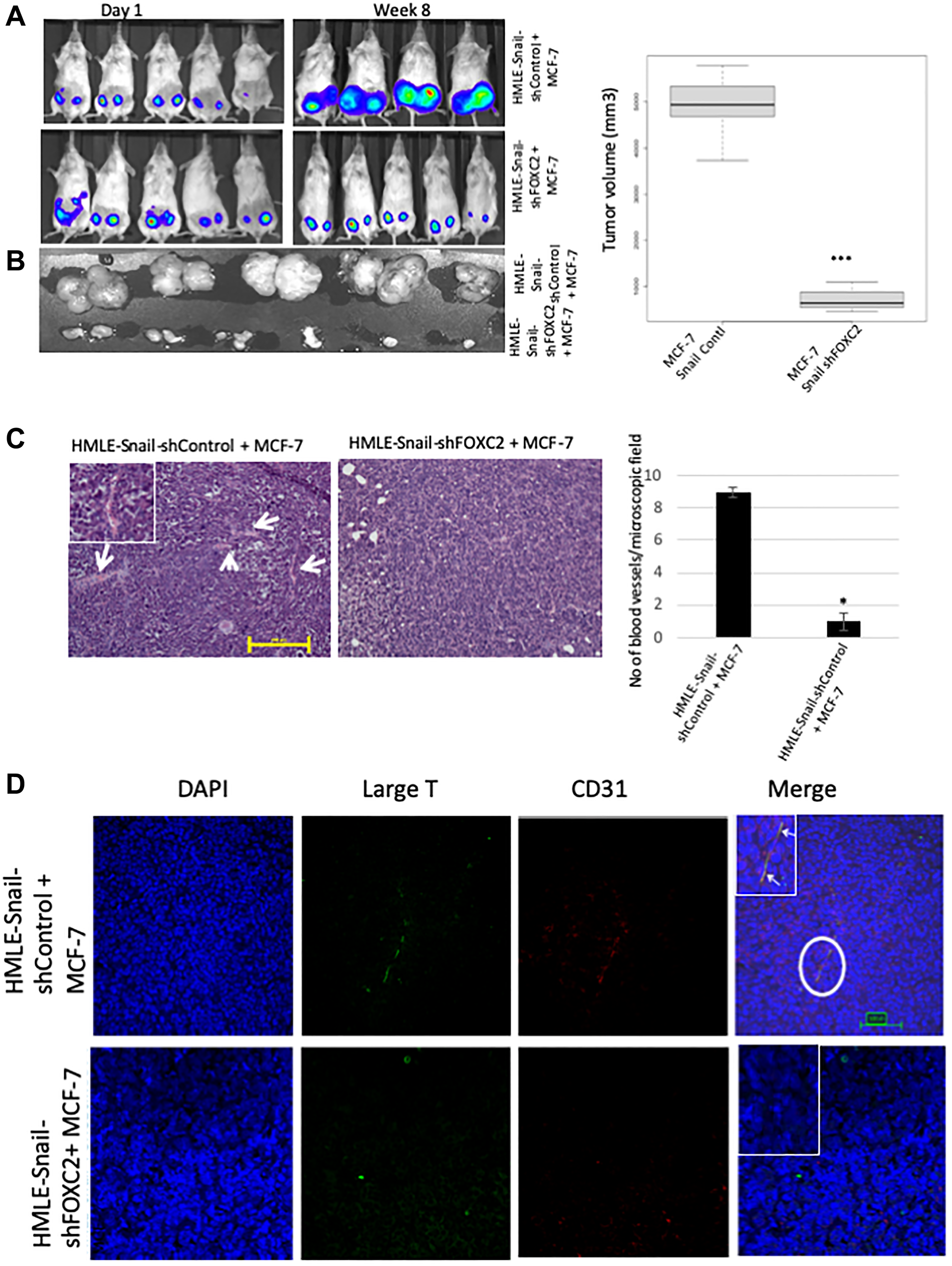 FOXC2 is necessary for the ability of cells that have undergone EMT to augment neoangiogenesis.