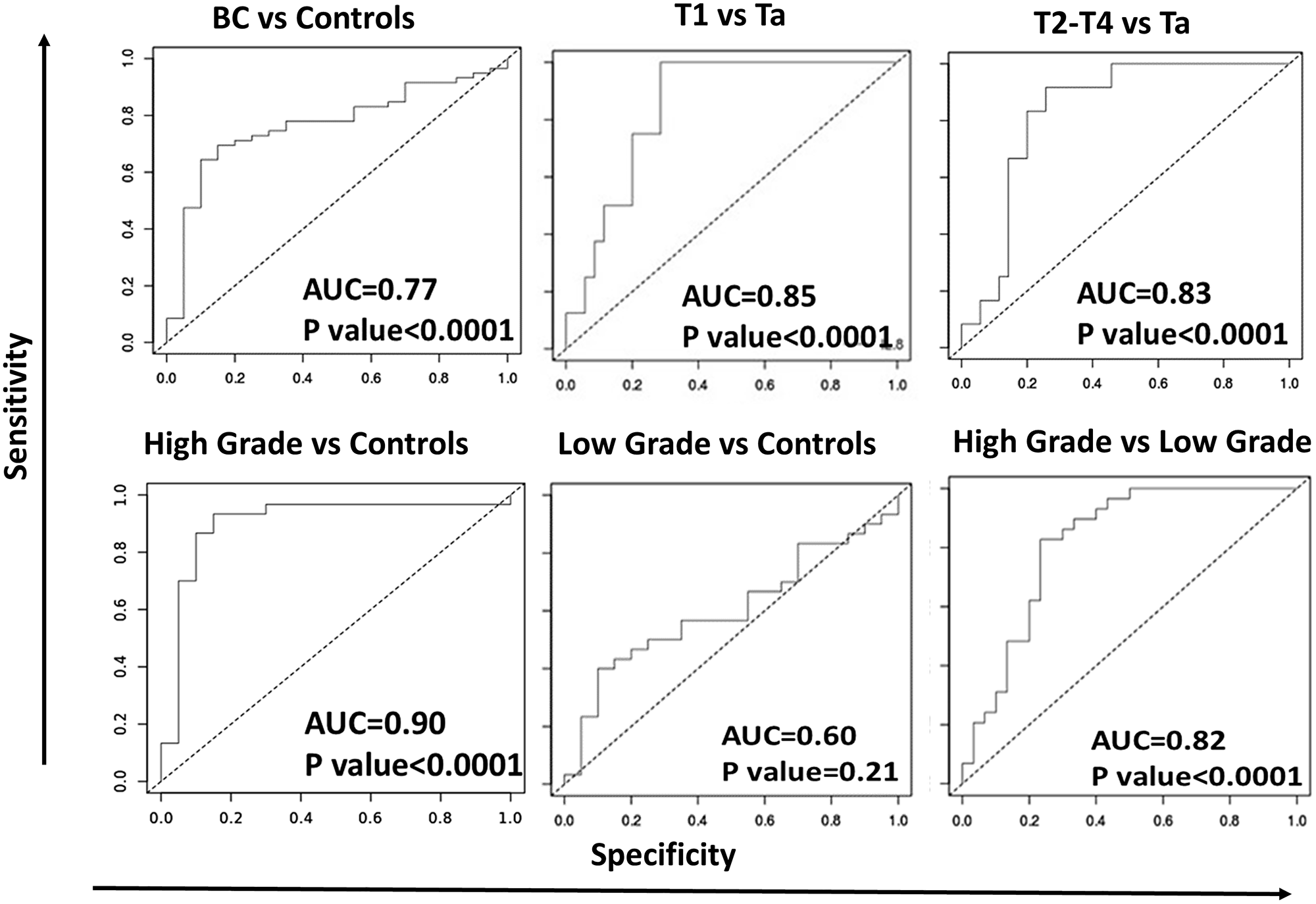ROC-AUC curves for urine IL-8 in distinguishing different stages of bladder cancer.