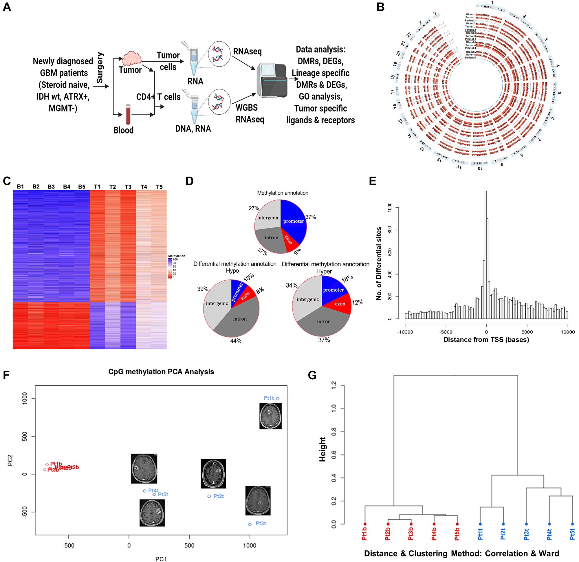 DNA methylome analysis of tumor infiltrating and peripheral blood CD4+ T cells from GBM Patients.