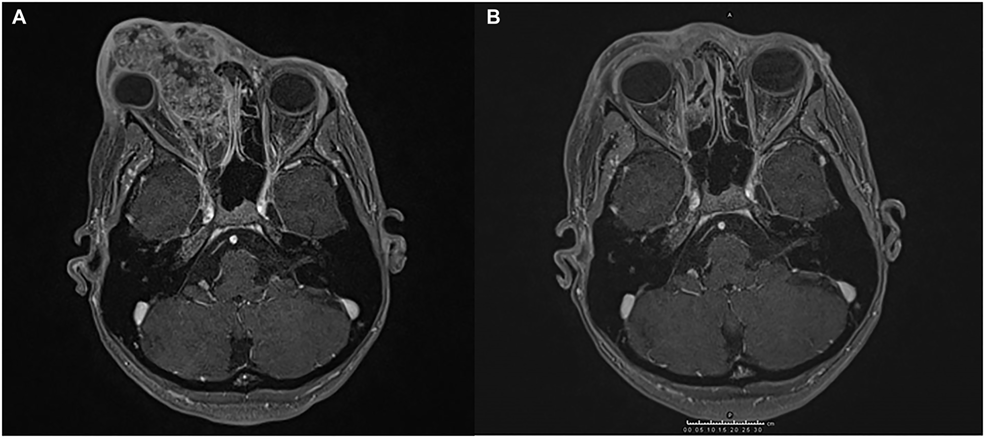 Magnetic resonance imaging (MRI) showing the response of SCC to the treatment administered.