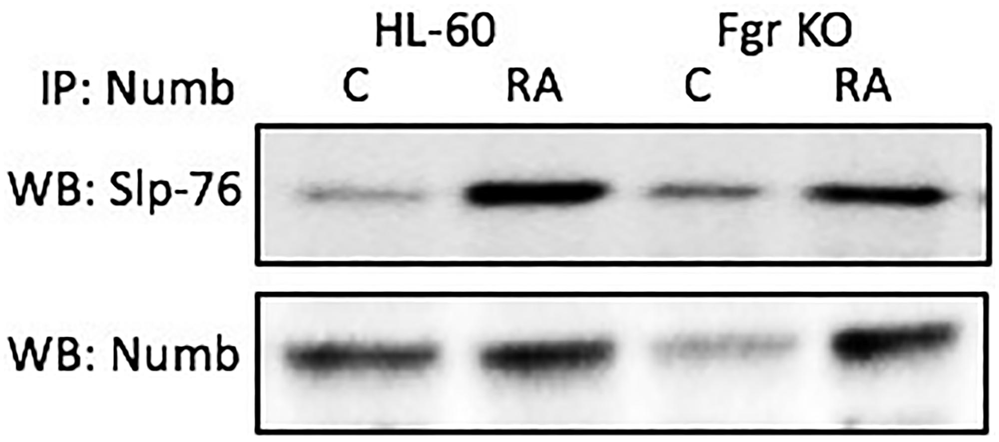 Numb binding Slp-76 in HL-60 wt and Fgr KO cells assayed by immunoprecipitation.