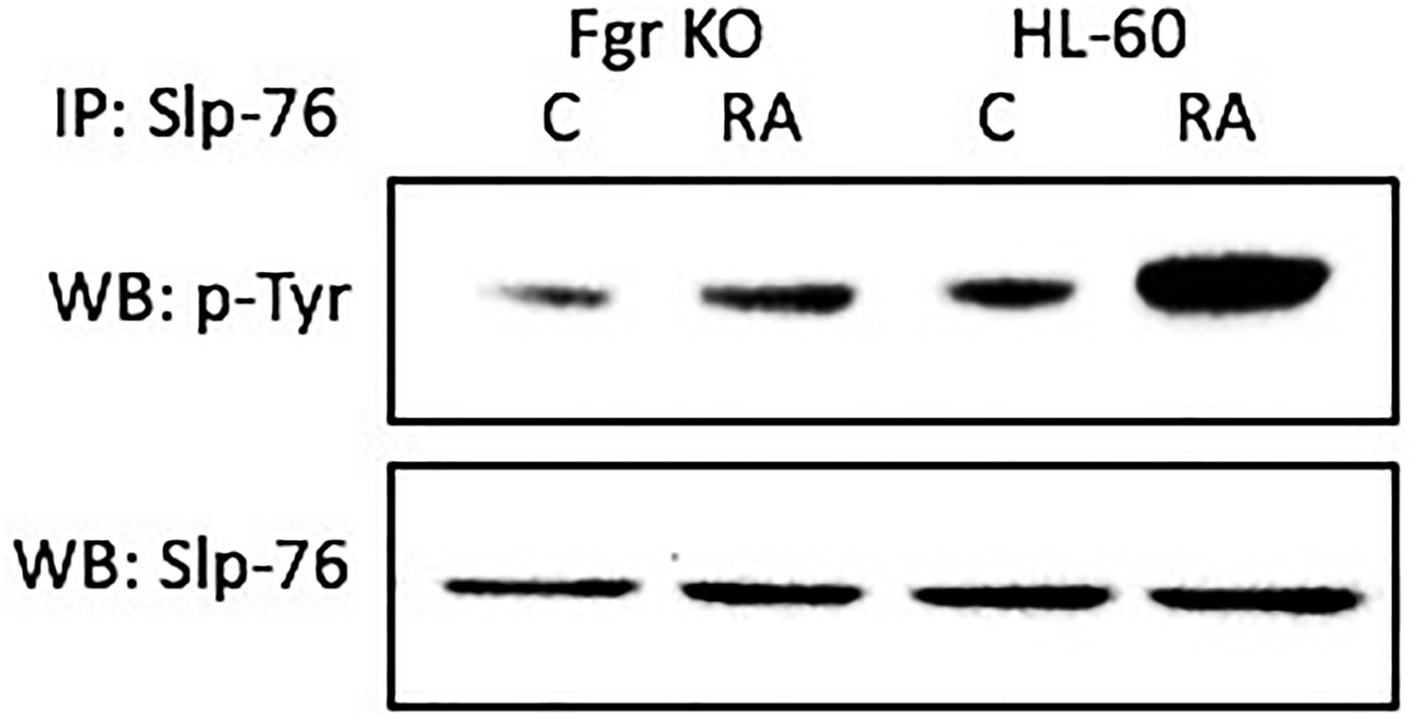 Slp-76 tyrosine phosphorylation in HL-60 wt and Fgr KO cells assessed by immunoprecipitation.