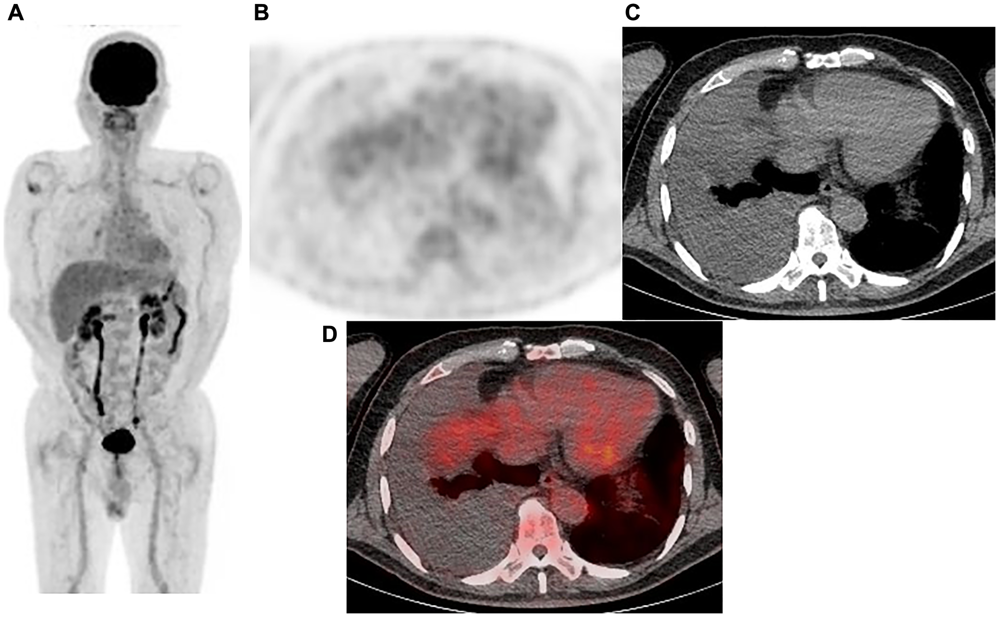 Representative case: 77-year-old male with right malignant pleural mesothelioma (epithelial type).