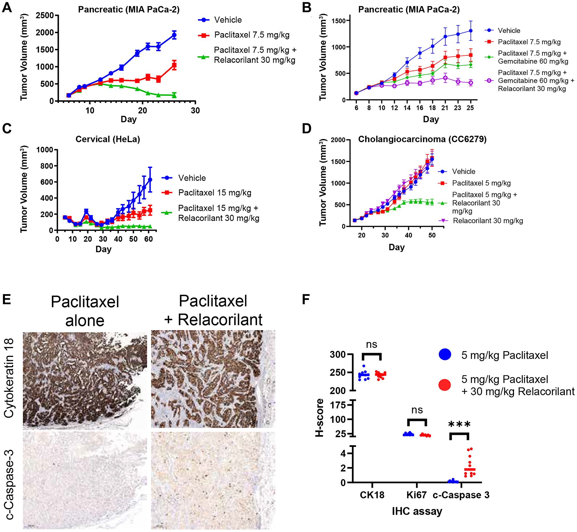 Relacorilant improves the efficacy and promotes apoptotic activity of cytotoxic therapy in xenograft models under physiological cortisol conditions.