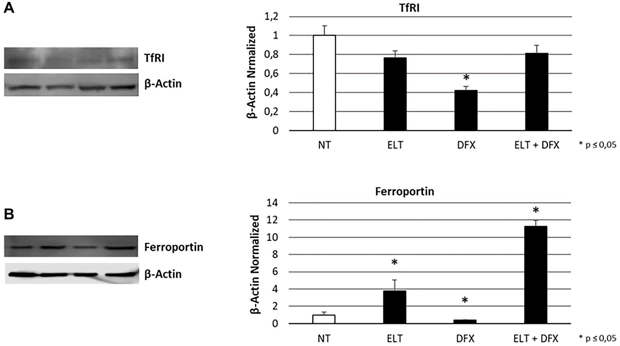 Effect of ELT and DFX on iron metabolism mediators.