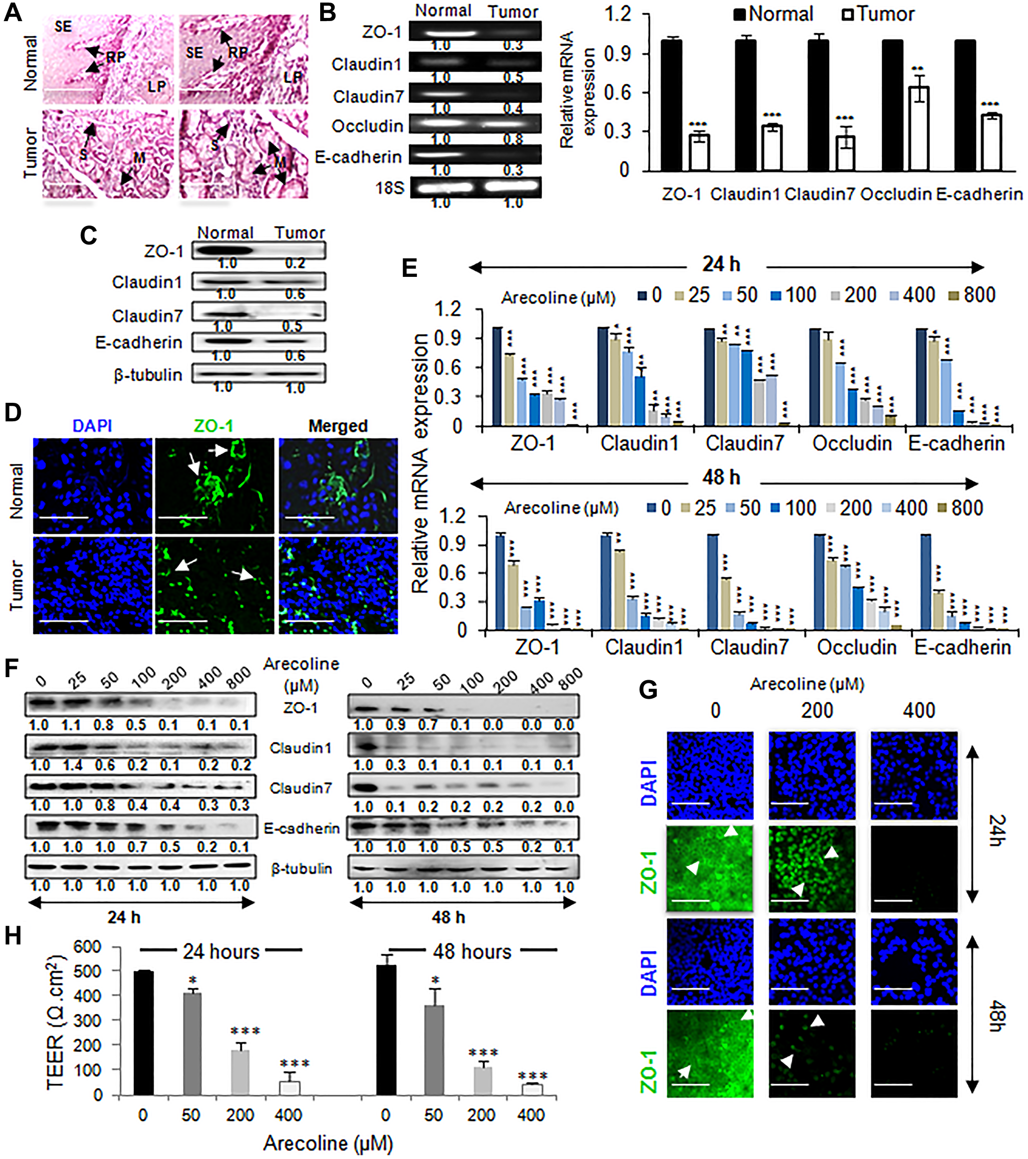 Arecoline disrupts tissue integrity and downregulates the expression of tight junction proteins in HNSCC.