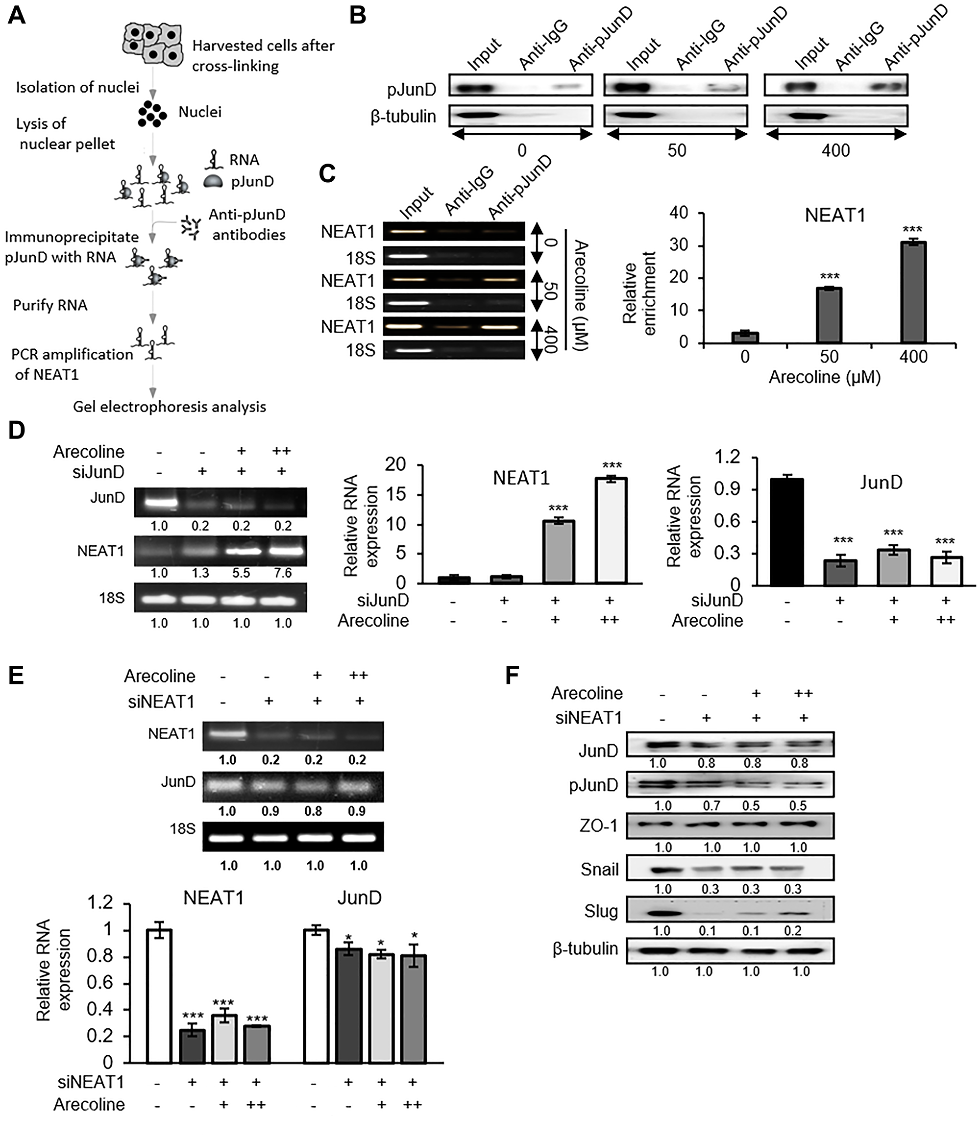 NEAT1 plays a pivotal role in JunD-mediated downregulation of ZO-1.